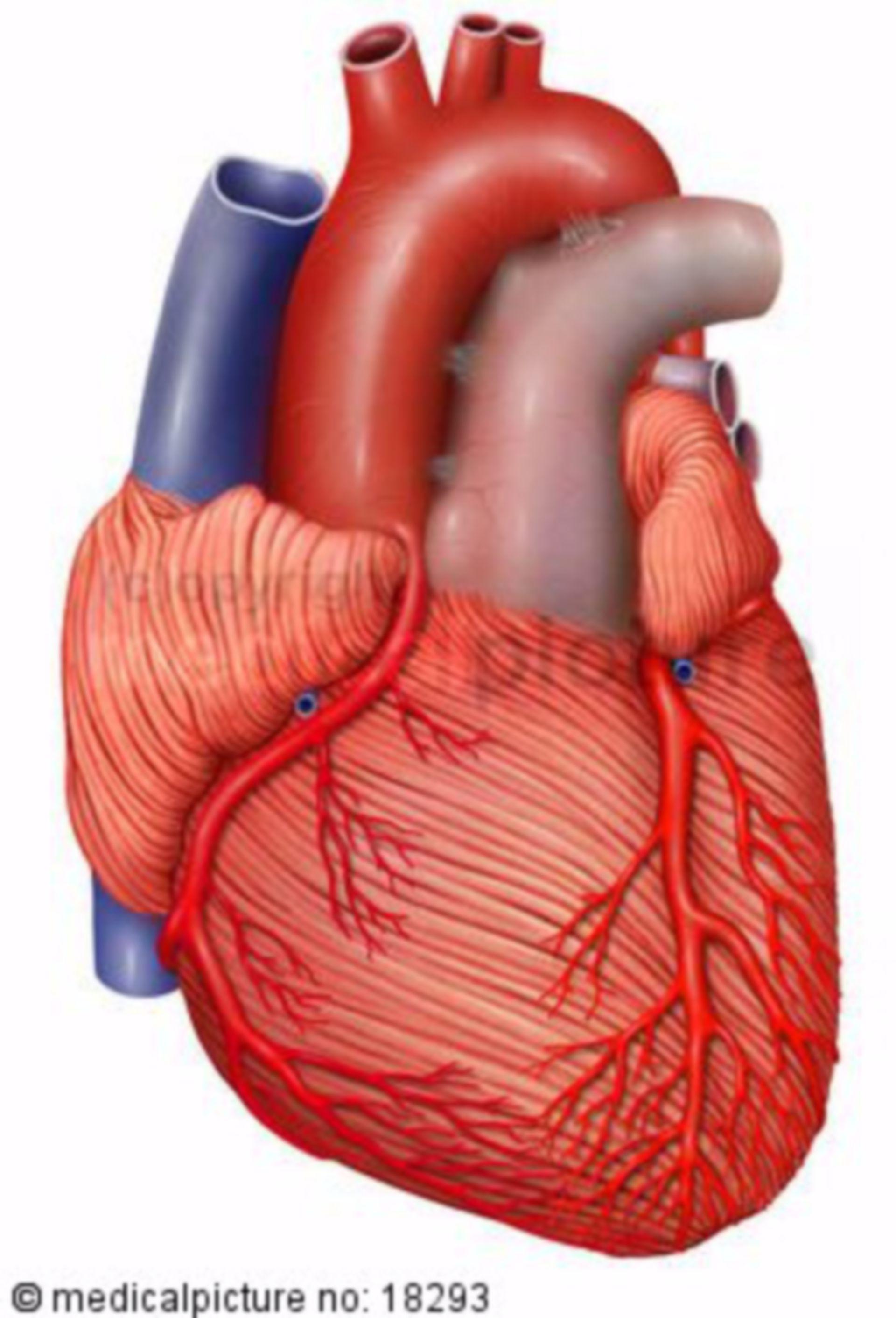 Miocardio con coronaropatia