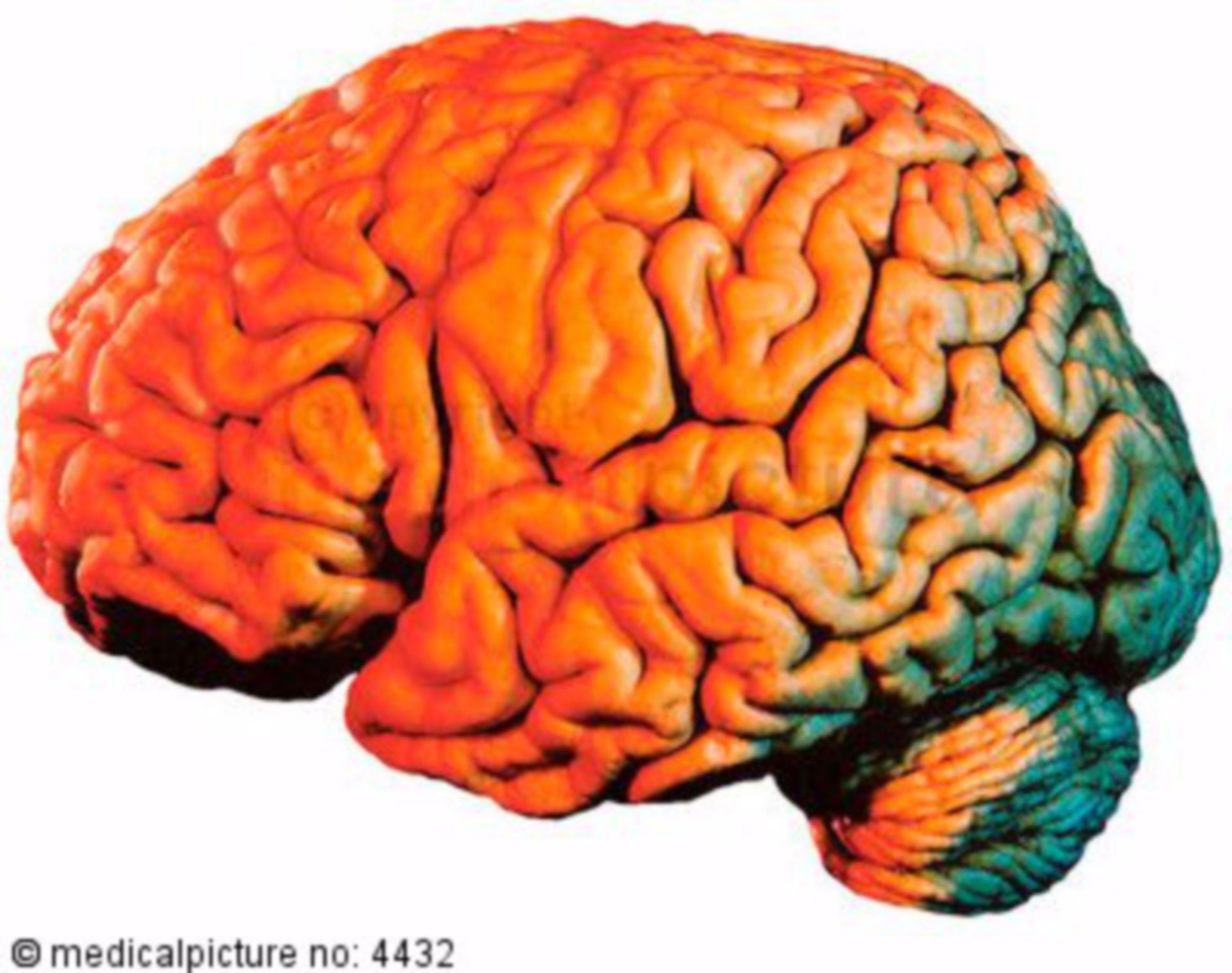 Cervello, visione laterale