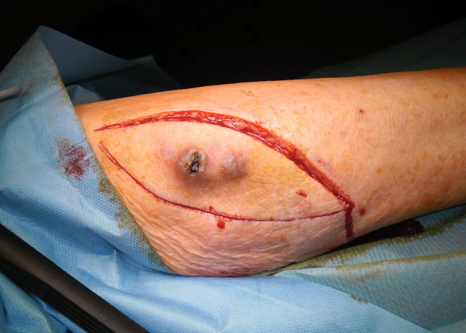 Melanoma - ruta de incisión