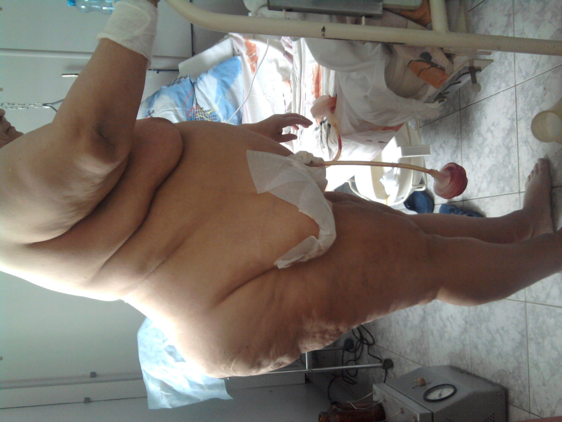 Dopo l'intervento