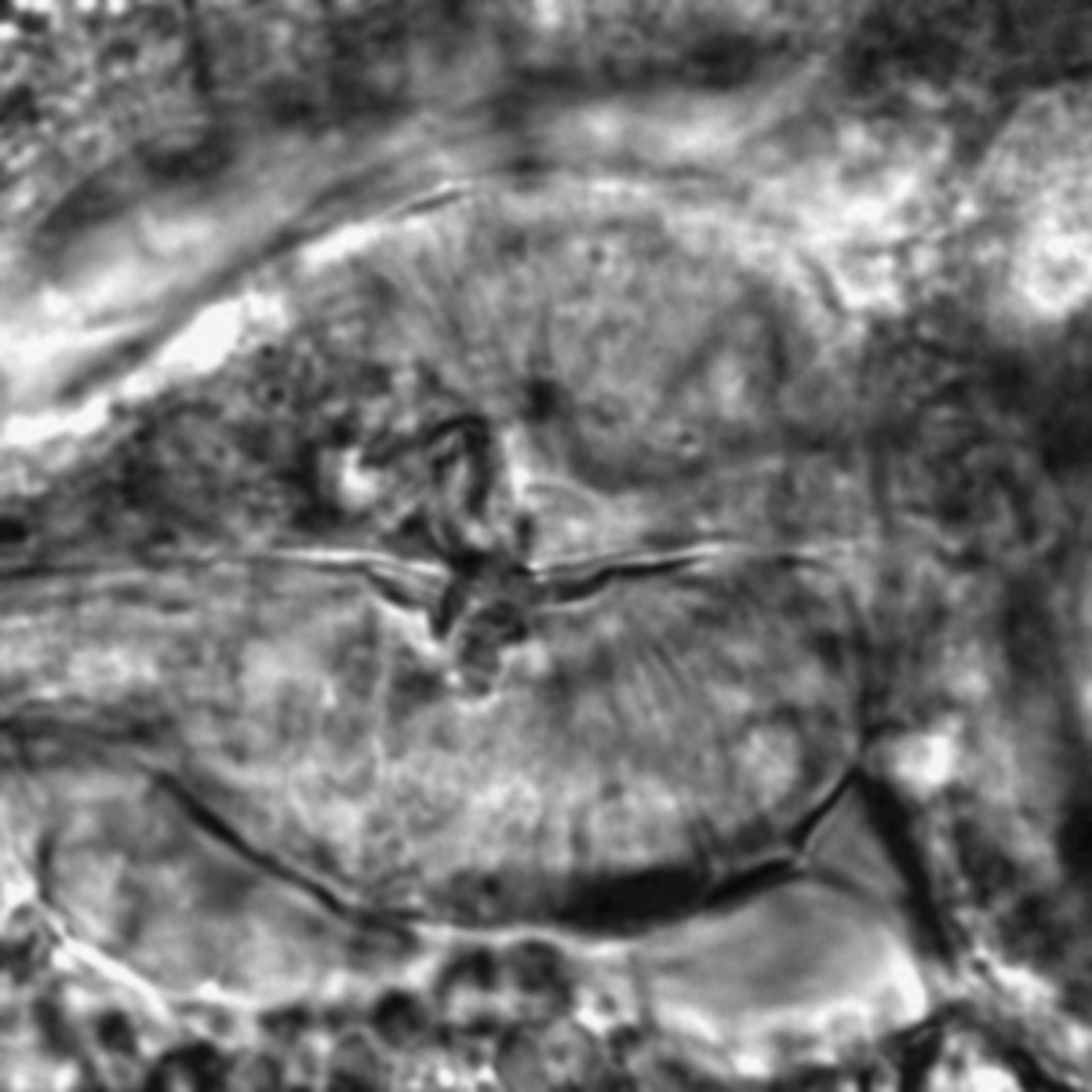 Caenorhabditis elegans - CIL:1999