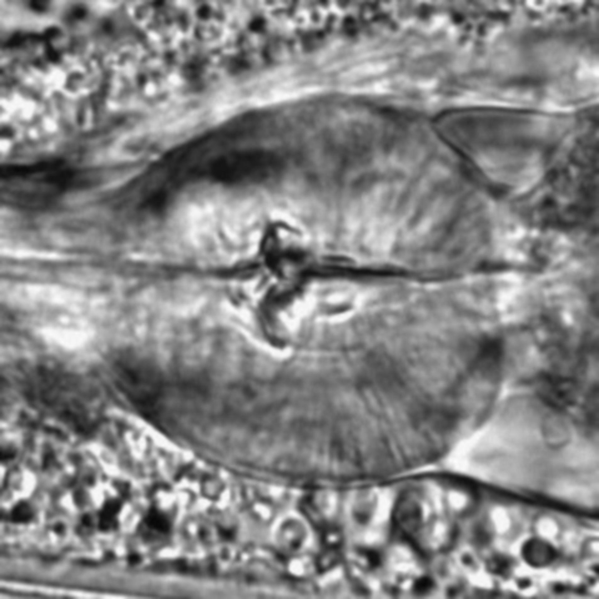 Caenorhabditis elegans - CIL:1777