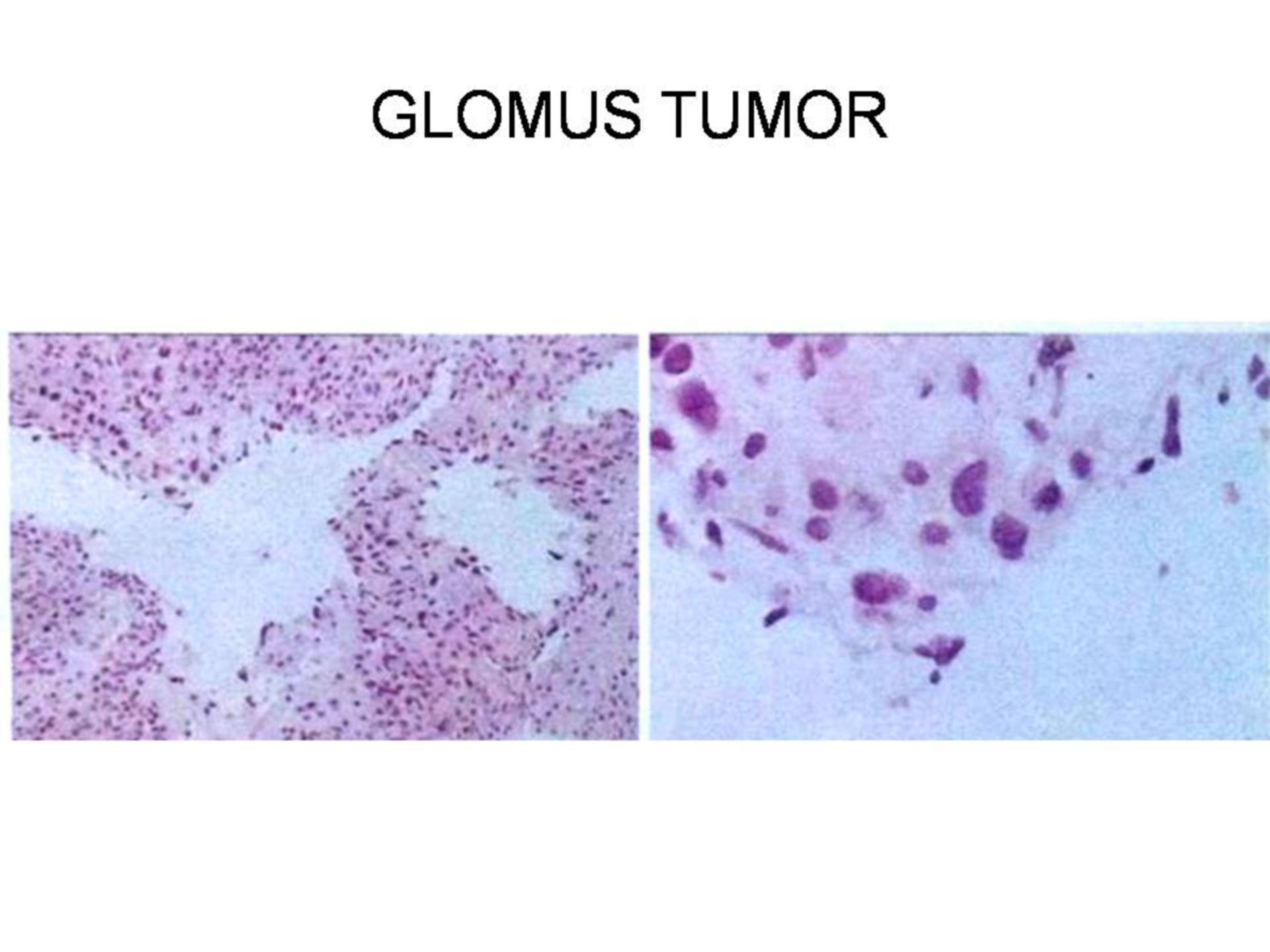 Tumor del glomus (2)
