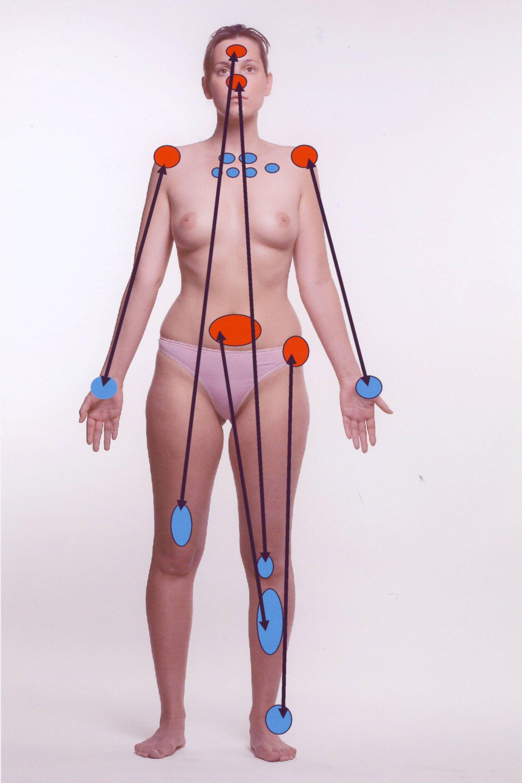 Schmerztherapie: ibis-Therapie Schema ventral