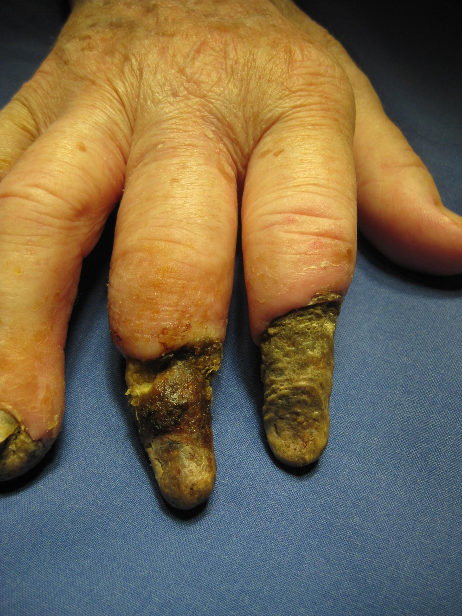Sclerodermia circumscripta