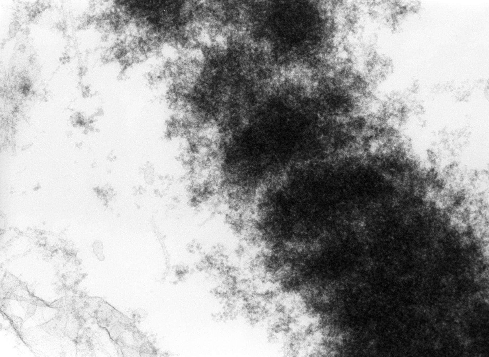 Haemanthus katharinae (Nuclear chromosome) - CIL:11905