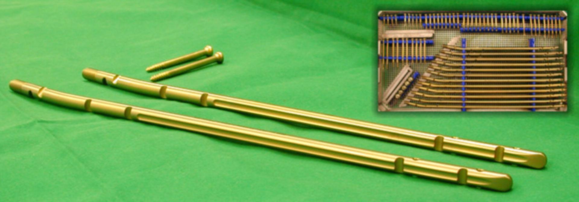 Tibia Nails and Interlocking Nails, Titan