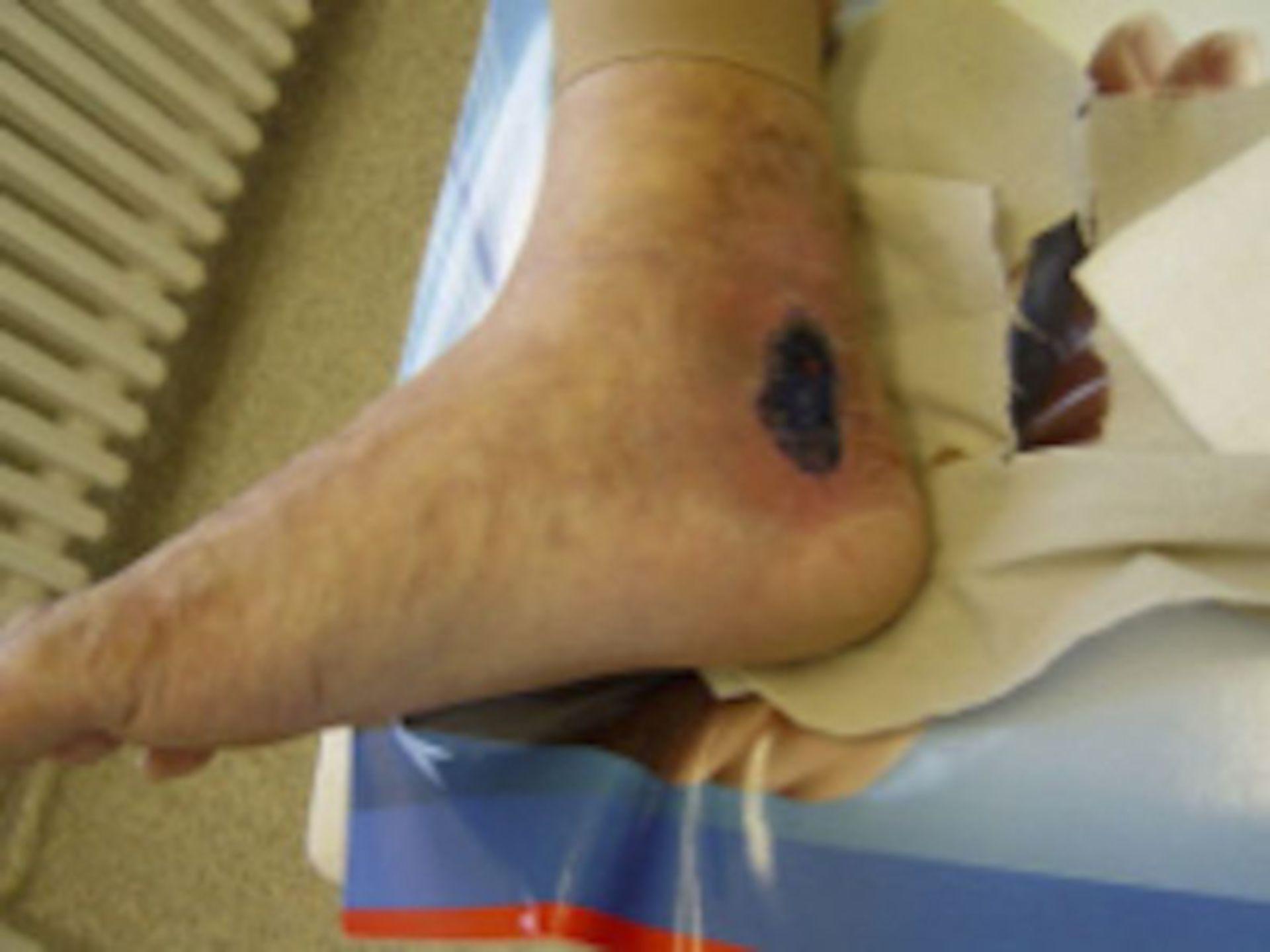 Offenes Bein nach mehrmaligen Frakturen (4)