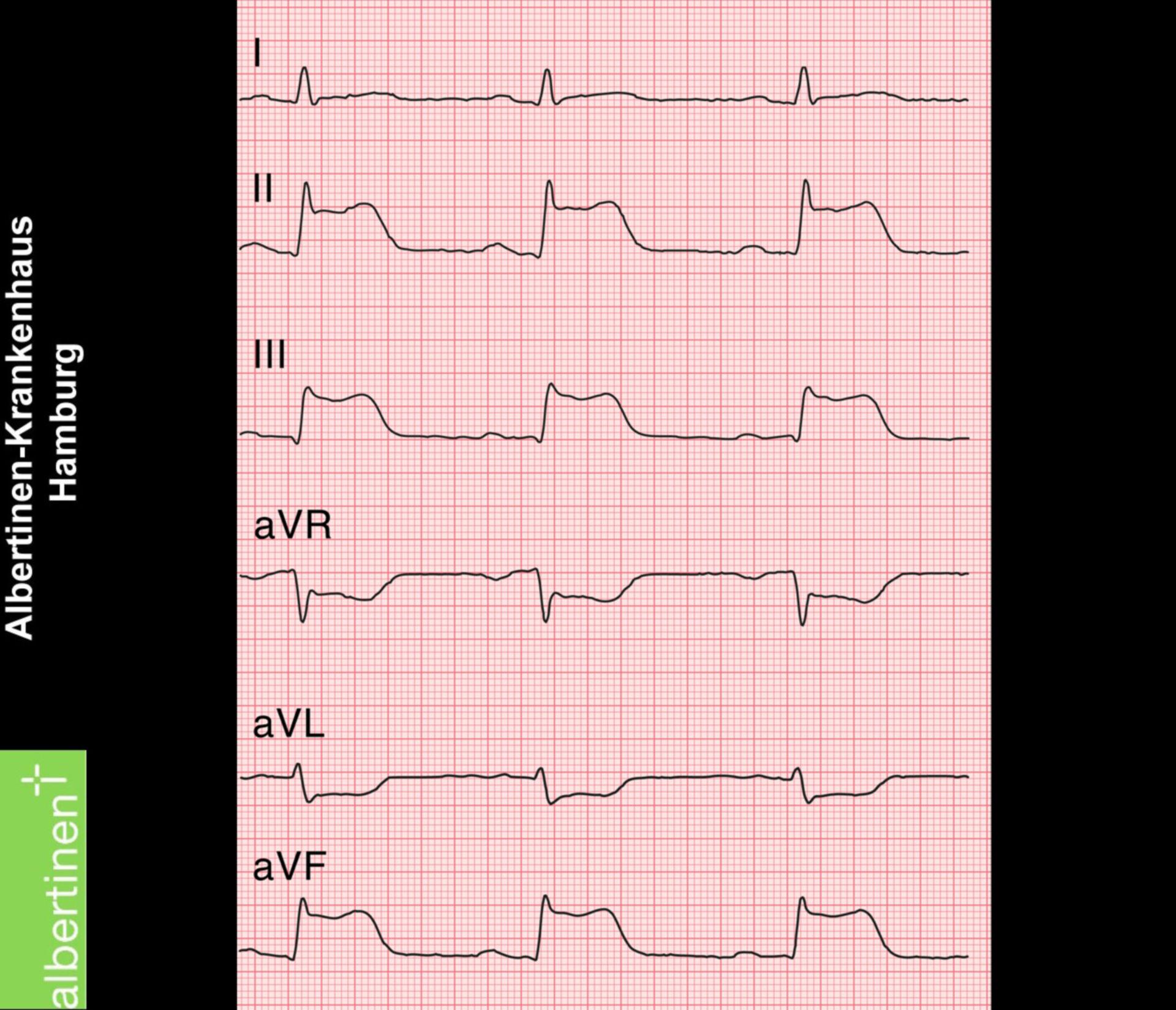 Infarto agudo de la pared posterior con elevación del segmento ST (ECG)