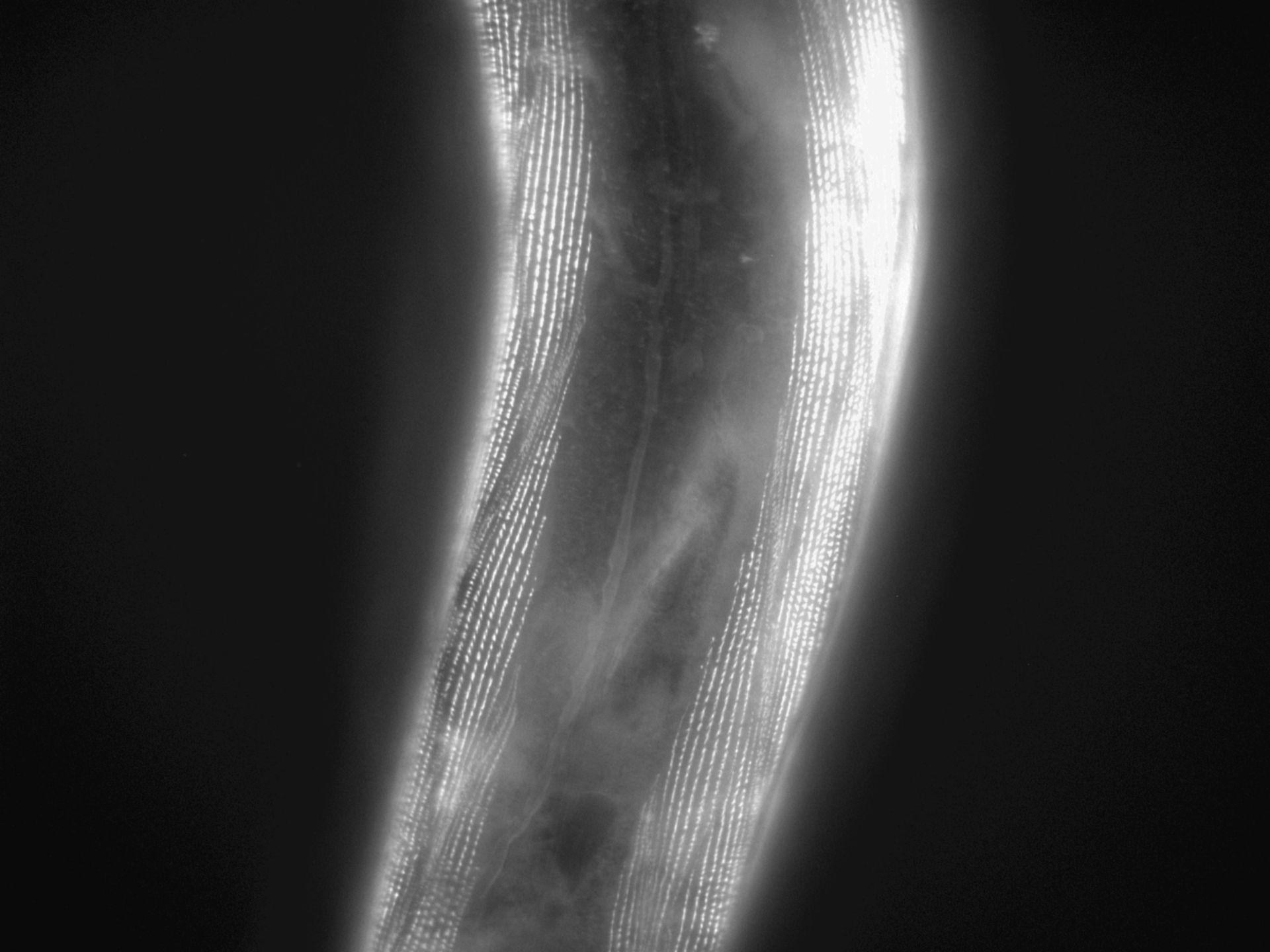 Caenorhabditis elegans (filamento di actina) - CIL:1185