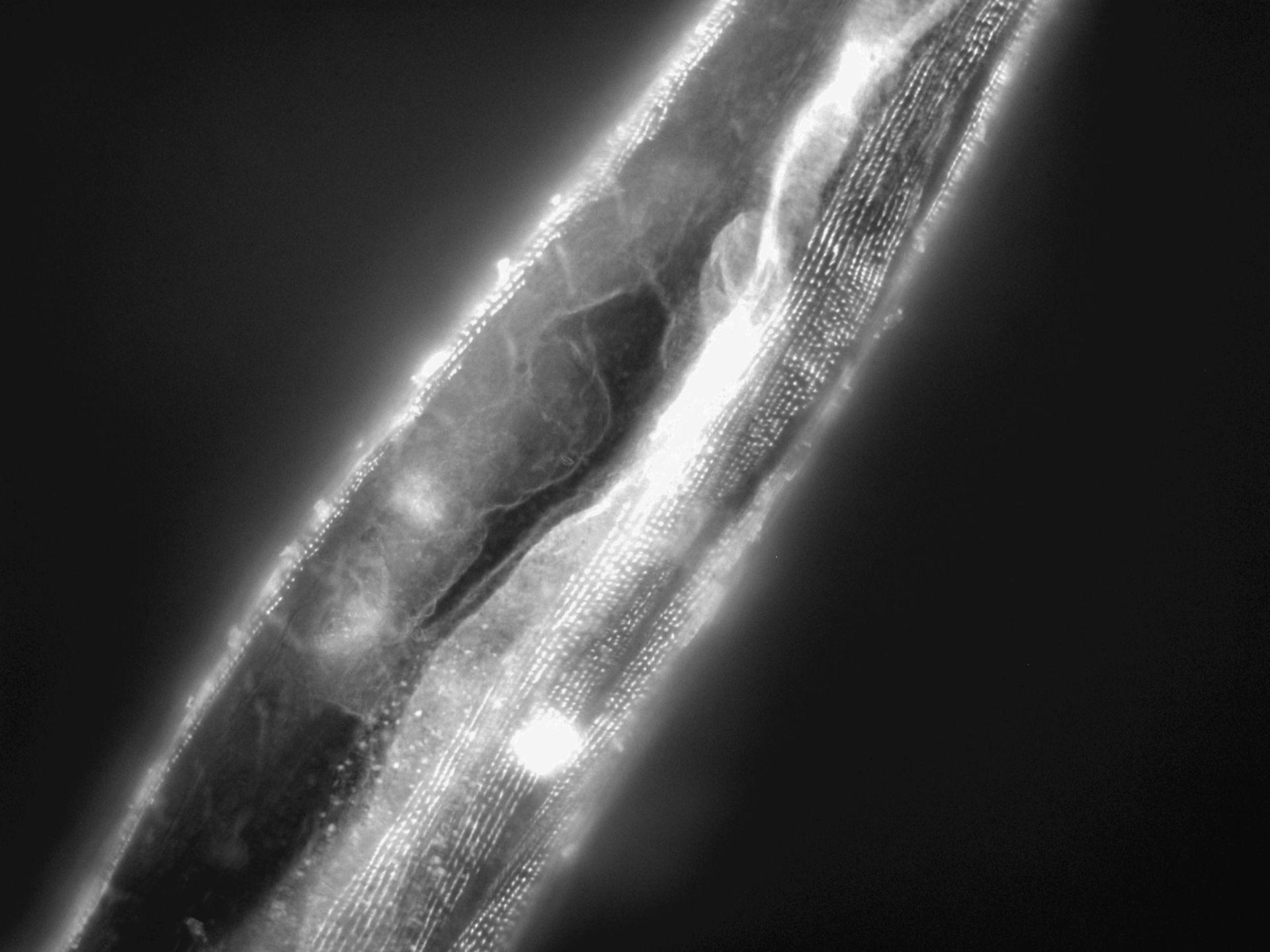 Caenorhabditis elegans (Actin filament) - CIL:1150