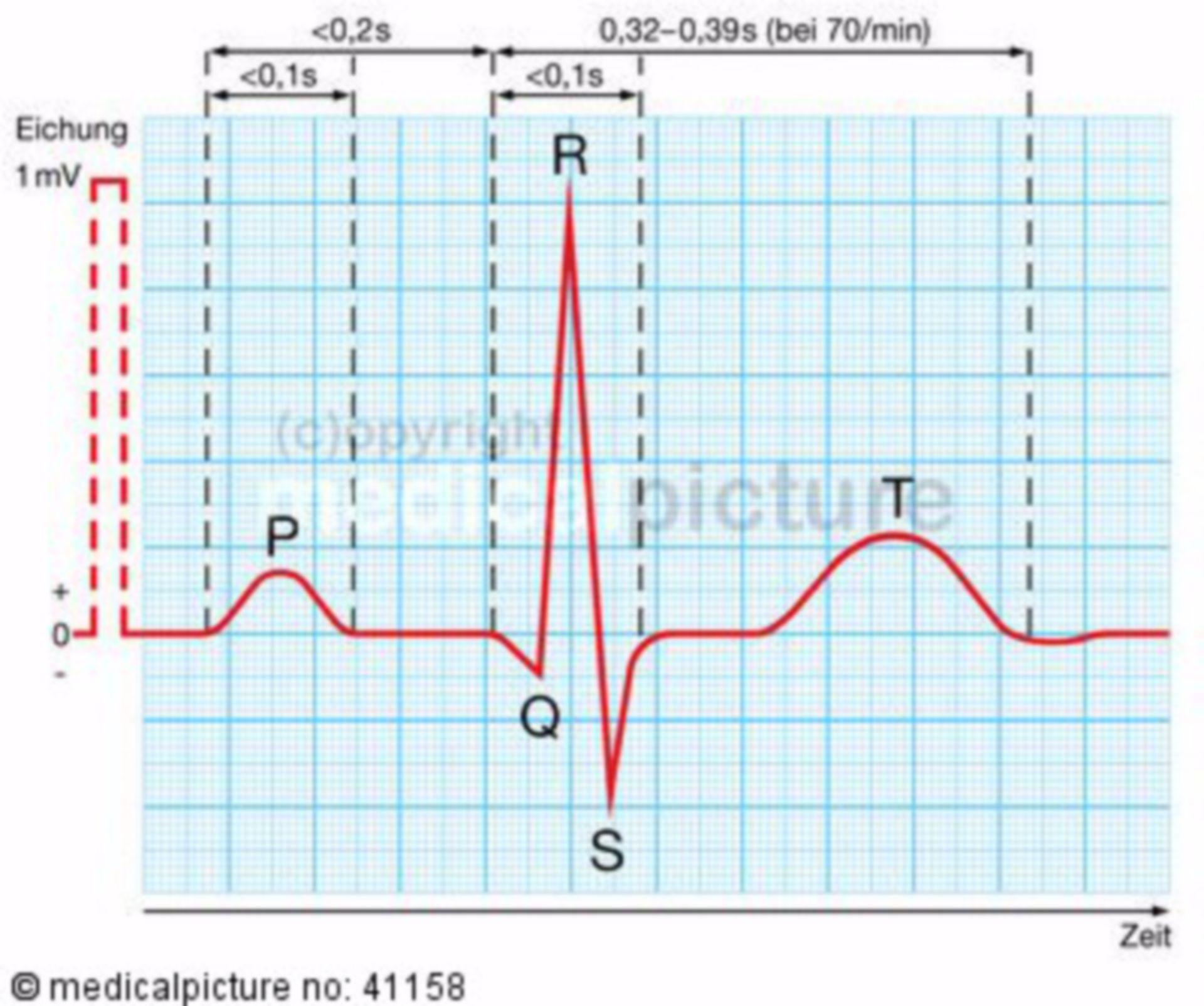 Elektrokardiogramm, EKG-Kurve