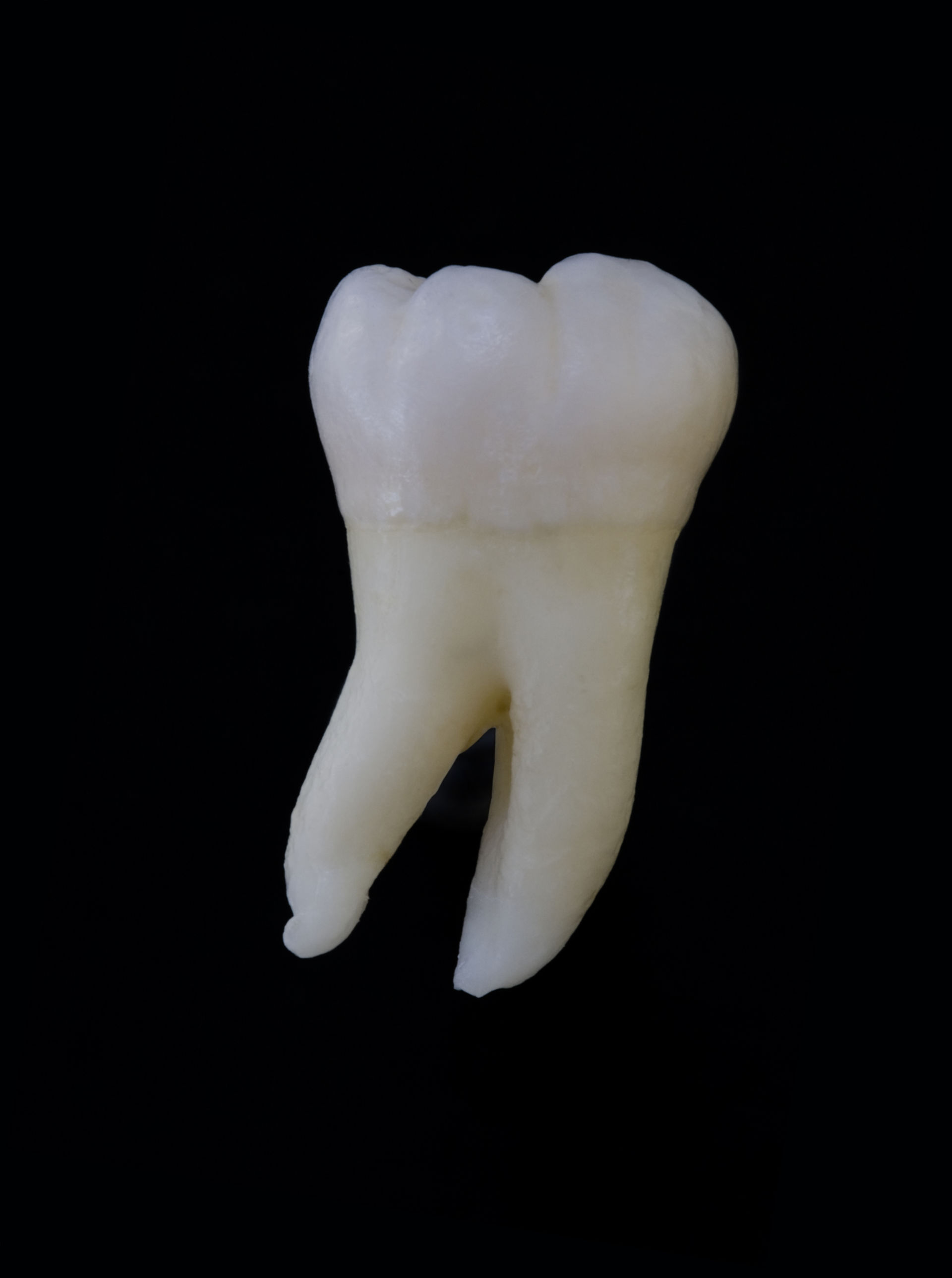 Tooth 48