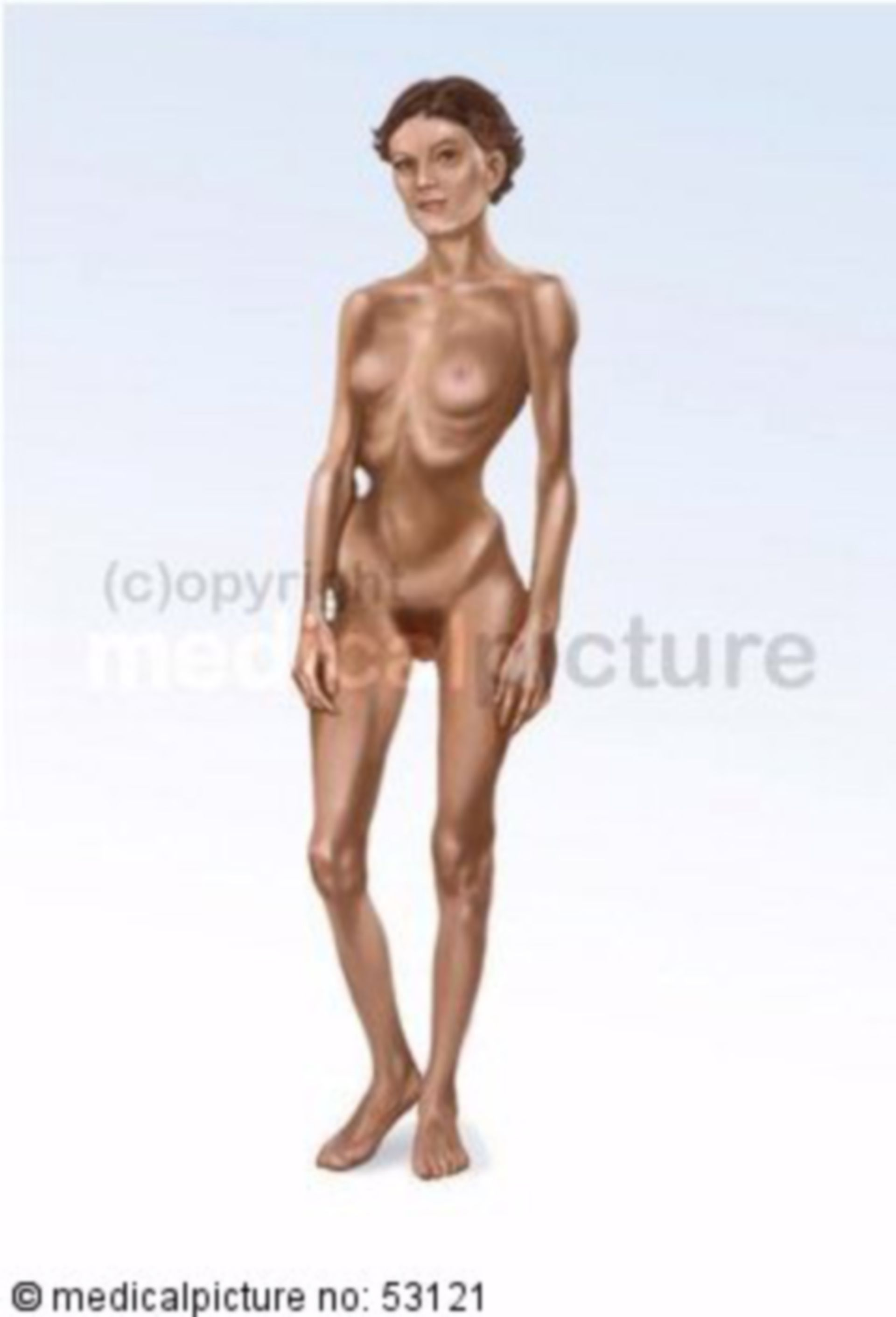 Anorexia 4