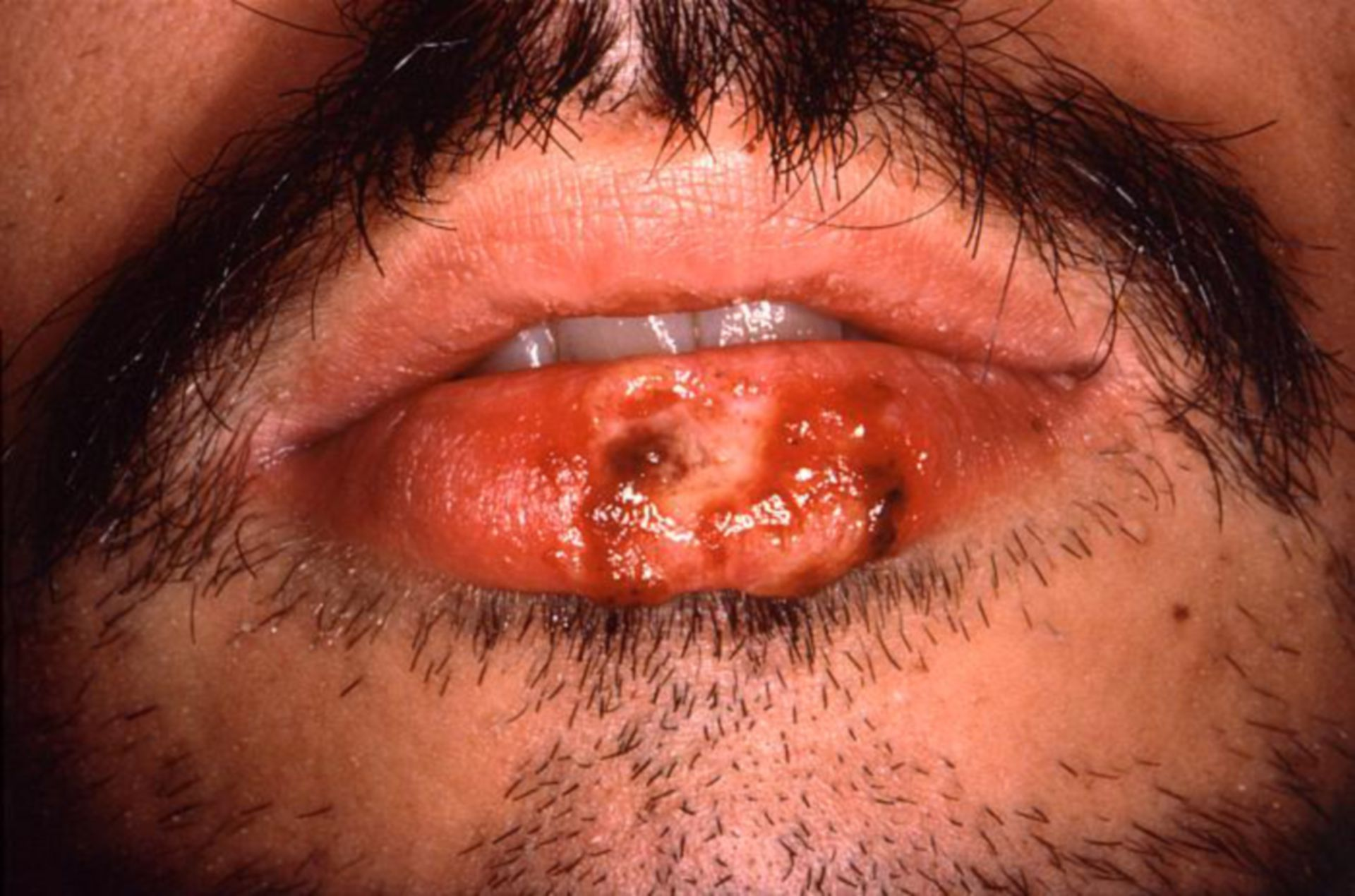 Herpes simplex - mukokutane Läsion