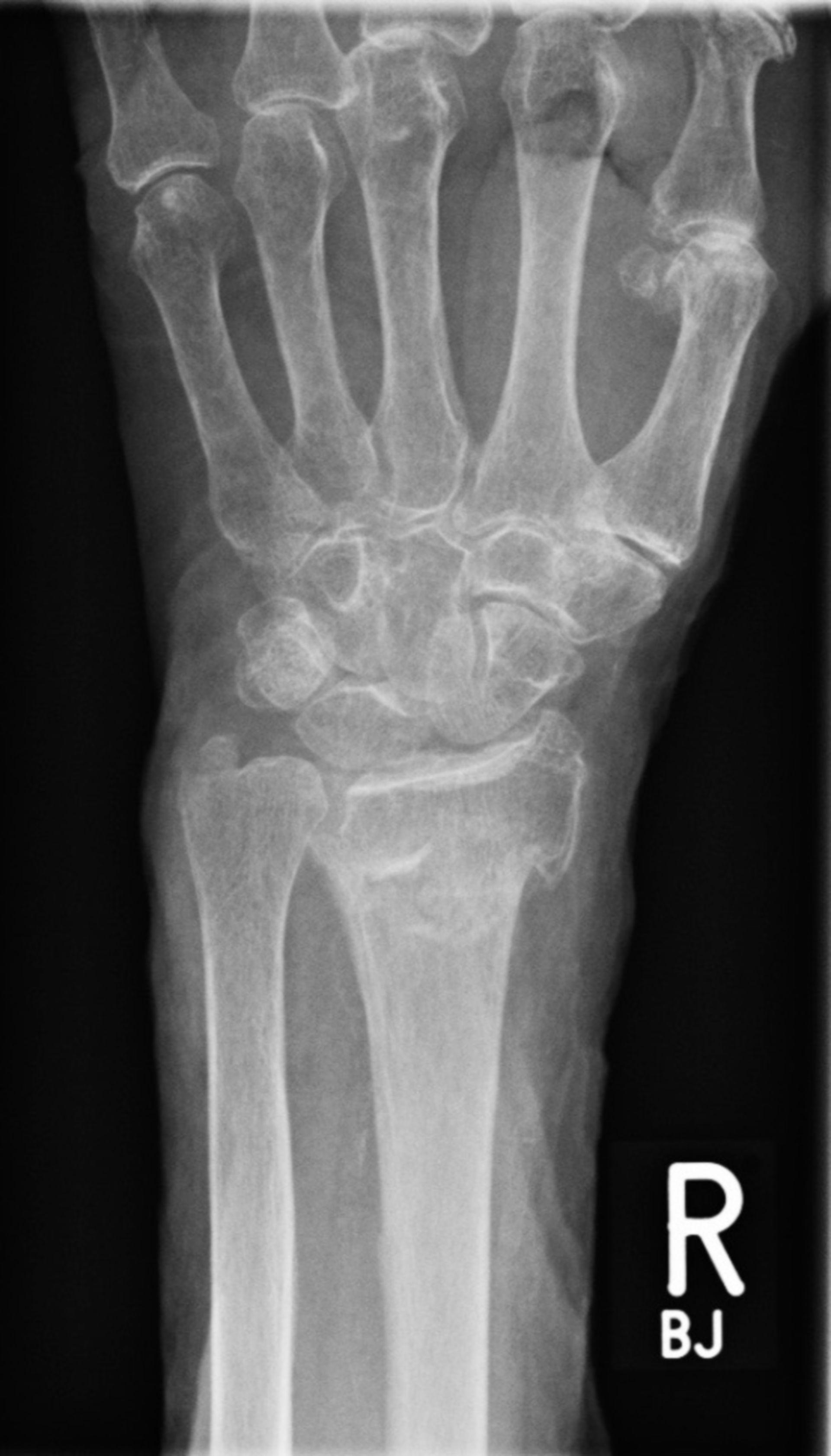 Röntgen des kompletten Unterarmes links mit distaler Radius- und Ulnafraktur