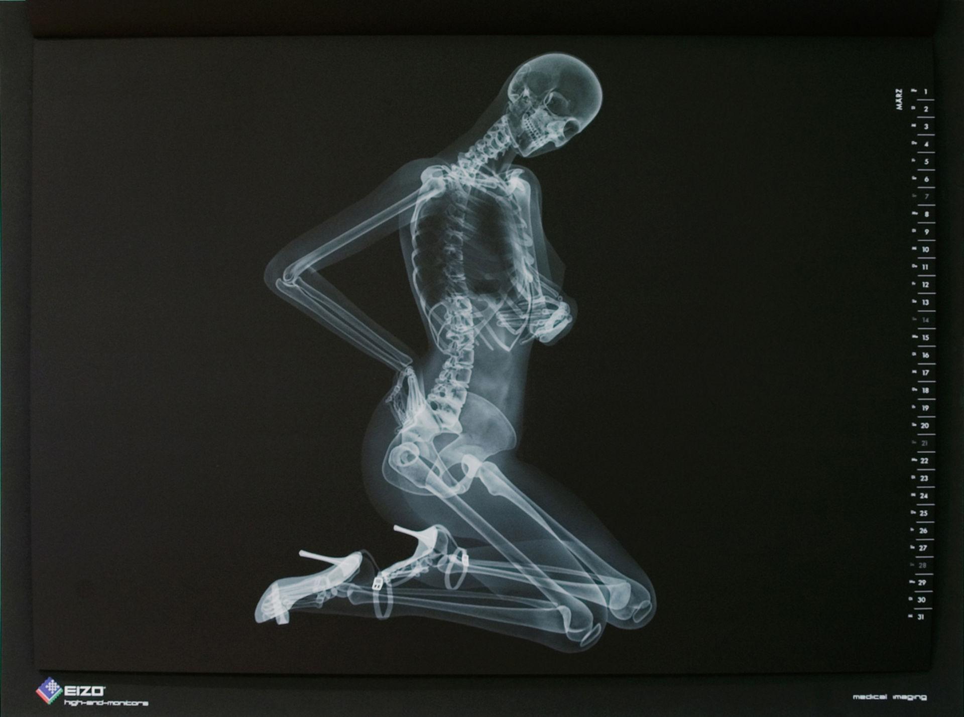 Röntgen-Pinup-Kalender von EIZO (März)