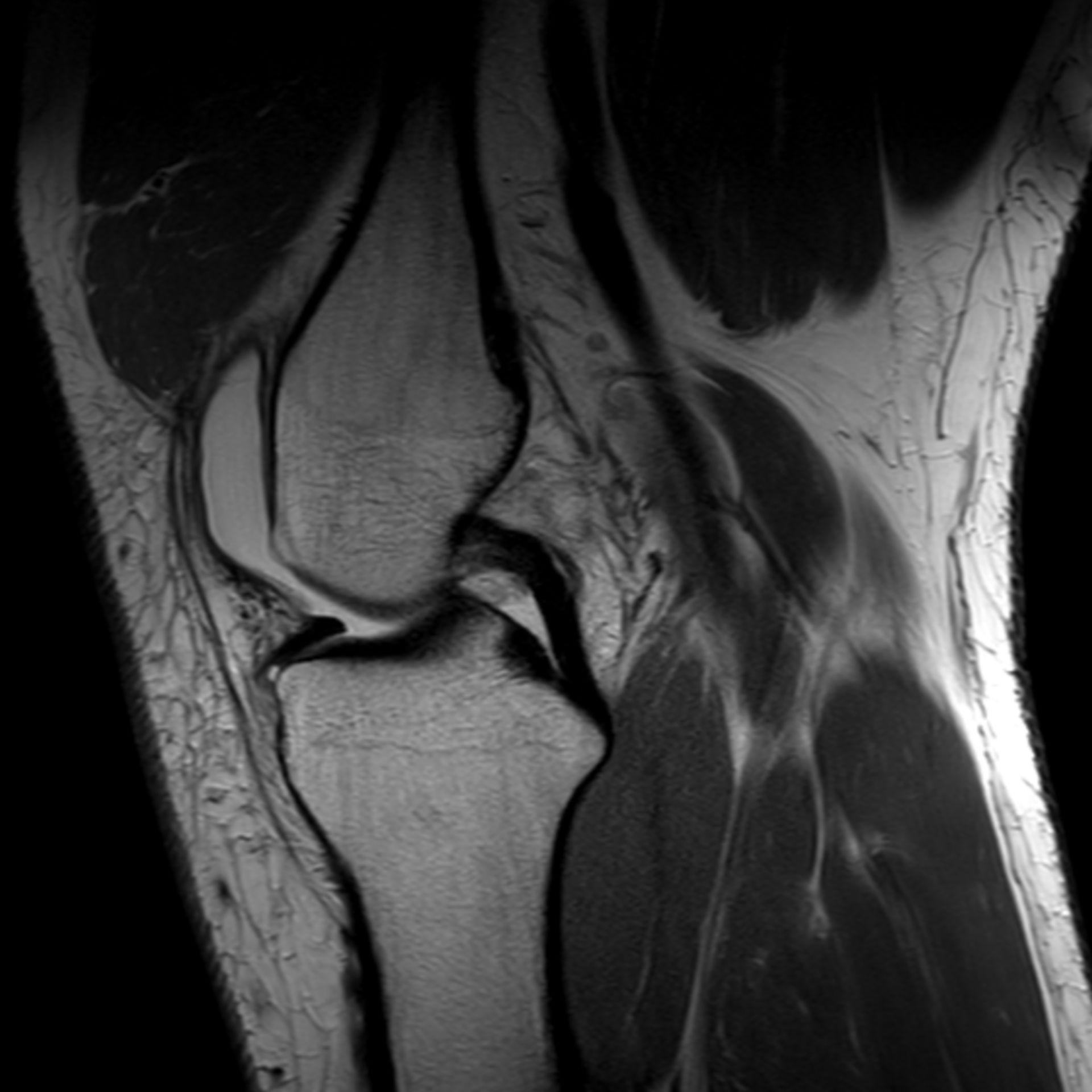 pd_tse_sag2: MRT-Aufnahme des Kniegelenkes in sagittaler Ebene