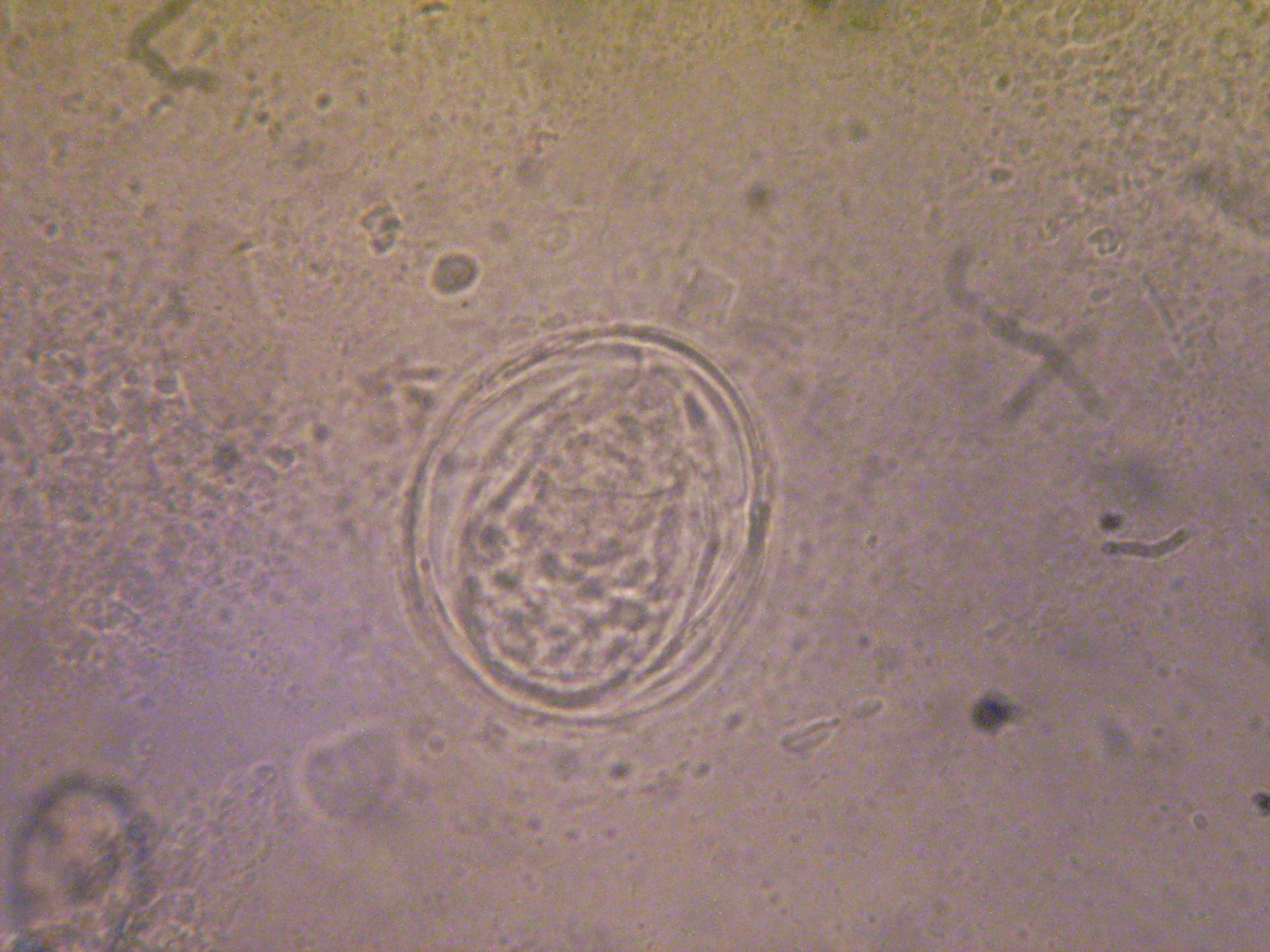 schistosoma mansoni b