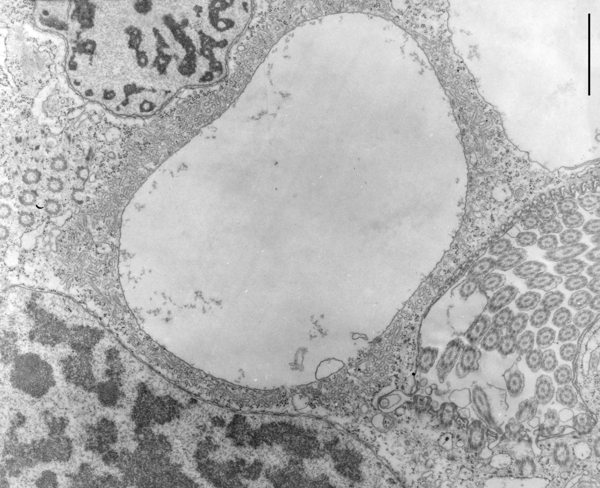 Opercularia coarctata (Microtubule basal body) - CIL:9910