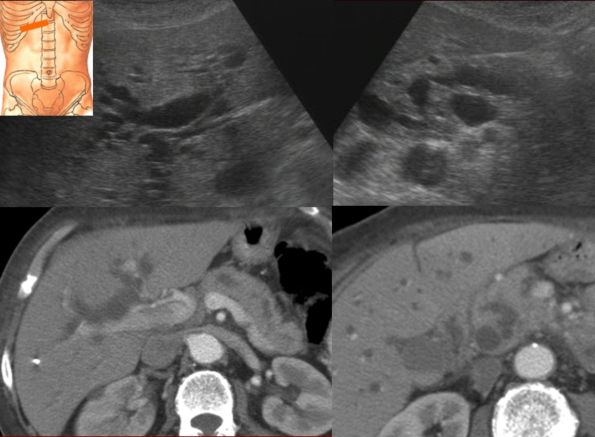 Intrahepatic cholestasis