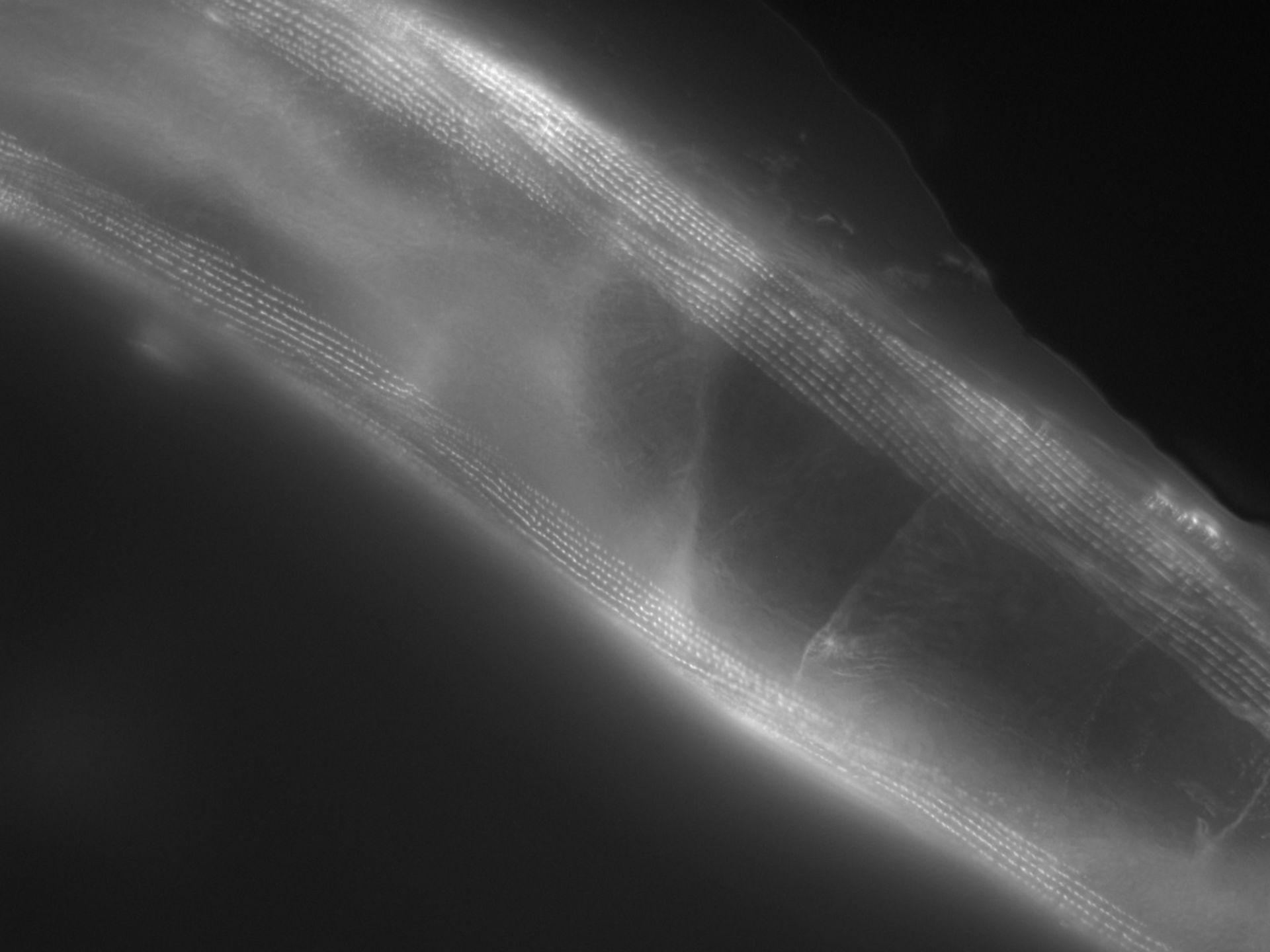 Caenorhabditis elegans (filamento di actina) - CIL:1143