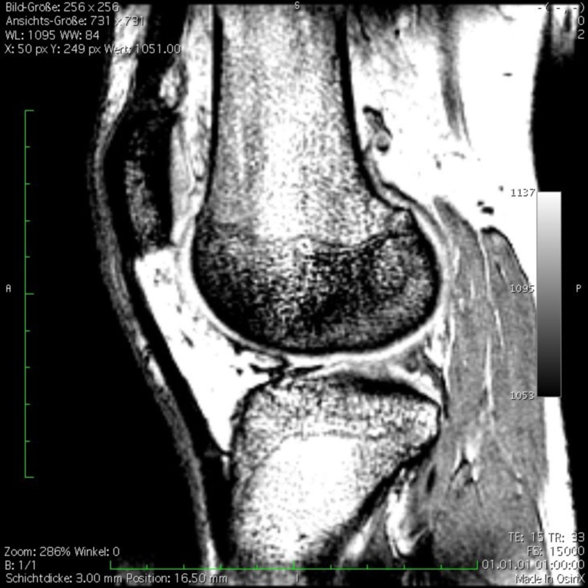 MRI del ginocchio