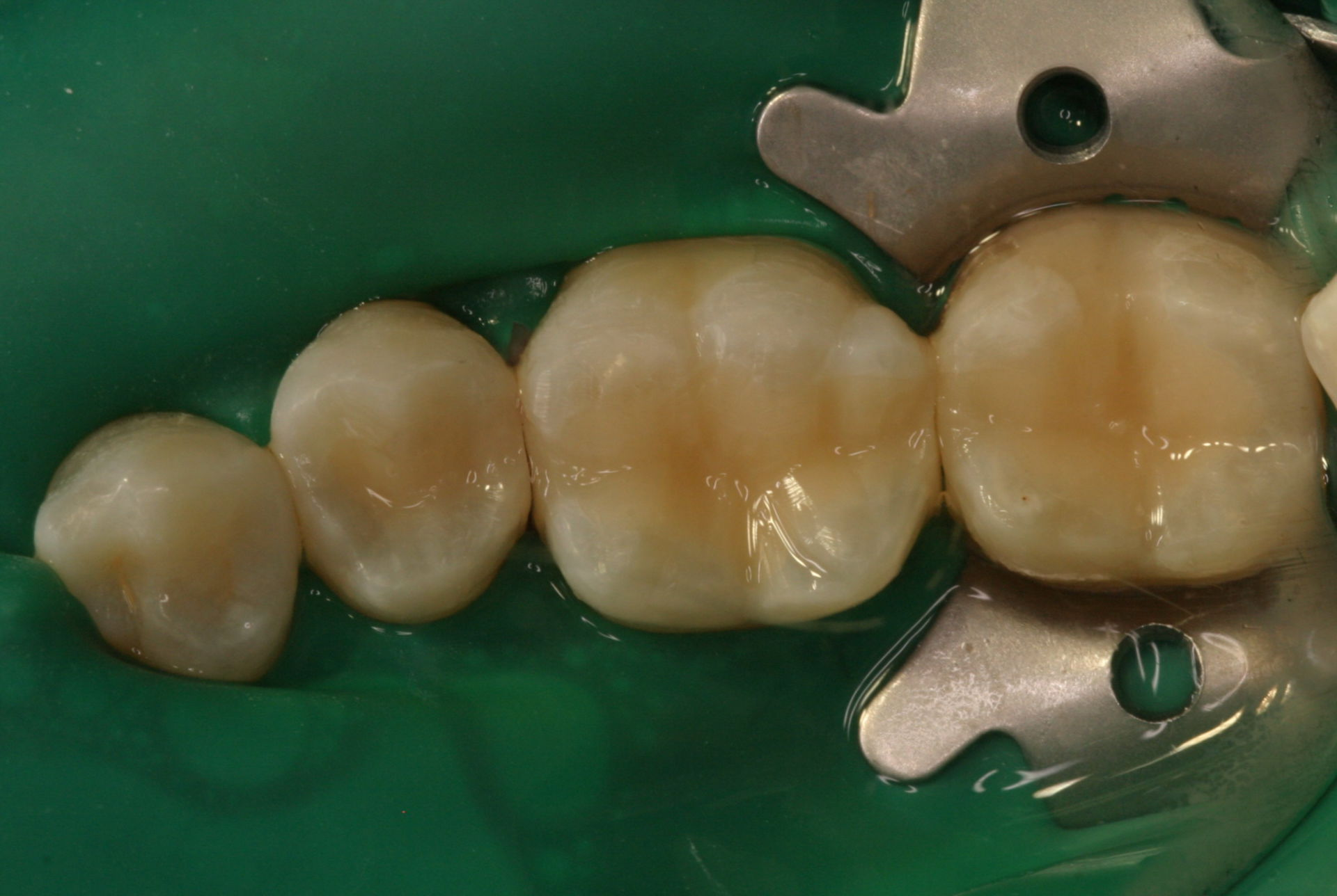45-47 after provision of adhesive fillings
