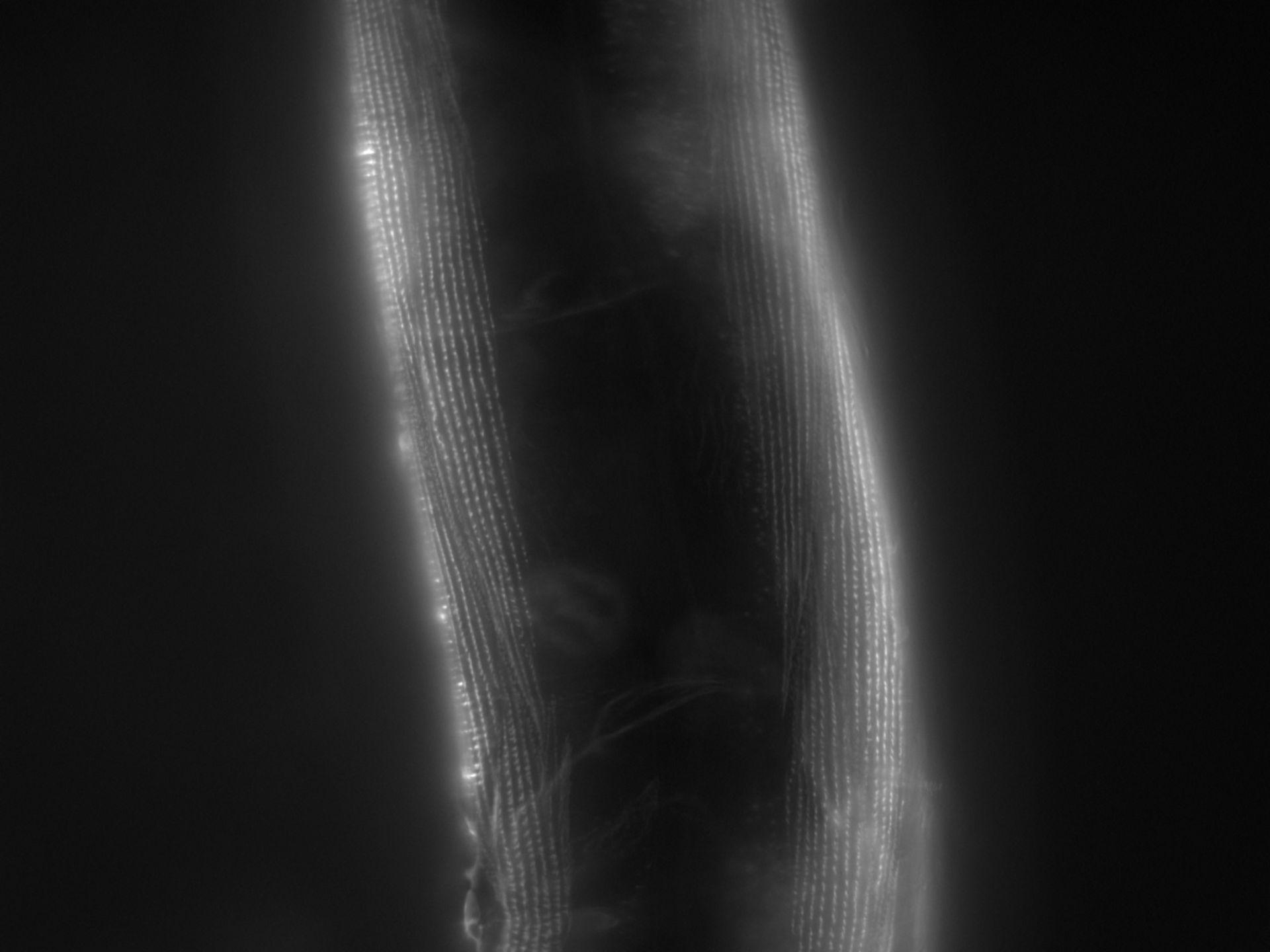Caenorhabditis elegans (Actin filament) - CIL:1168