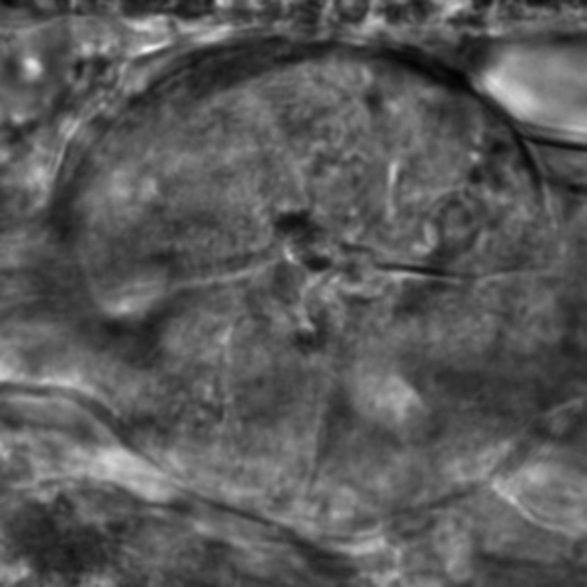 Caenorhabditis elegans - CIL:2170