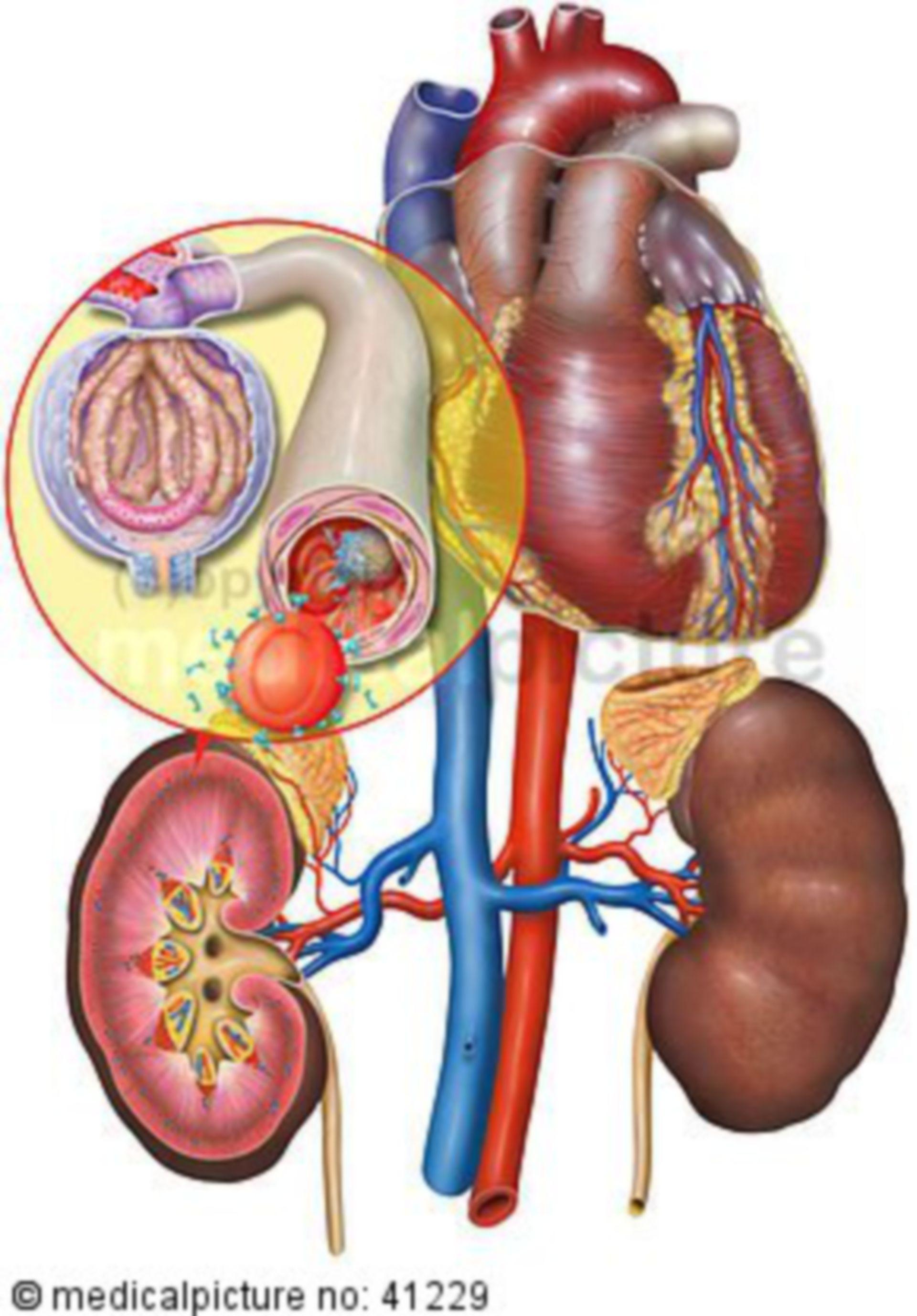 Harnwegsinfekt und Entzündung, urinary tract infection, sepsis