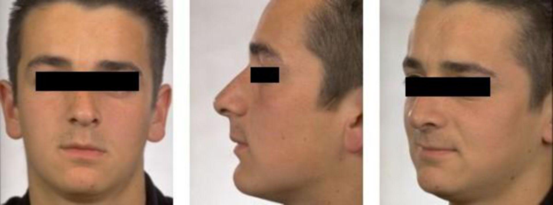 Nach Nasenkorrektur