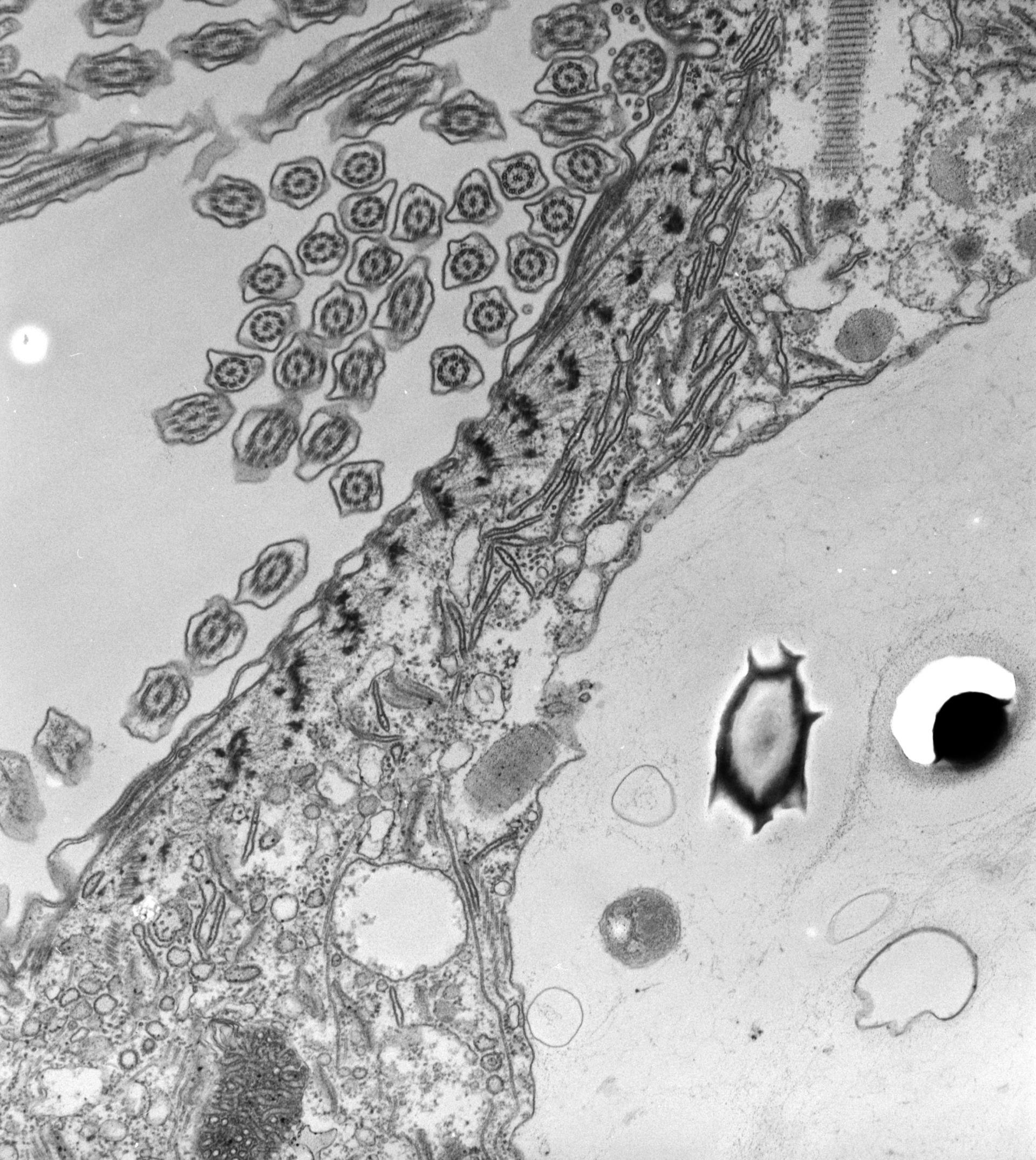 Paramecium caudatum (Endosoma) - CIL:39178