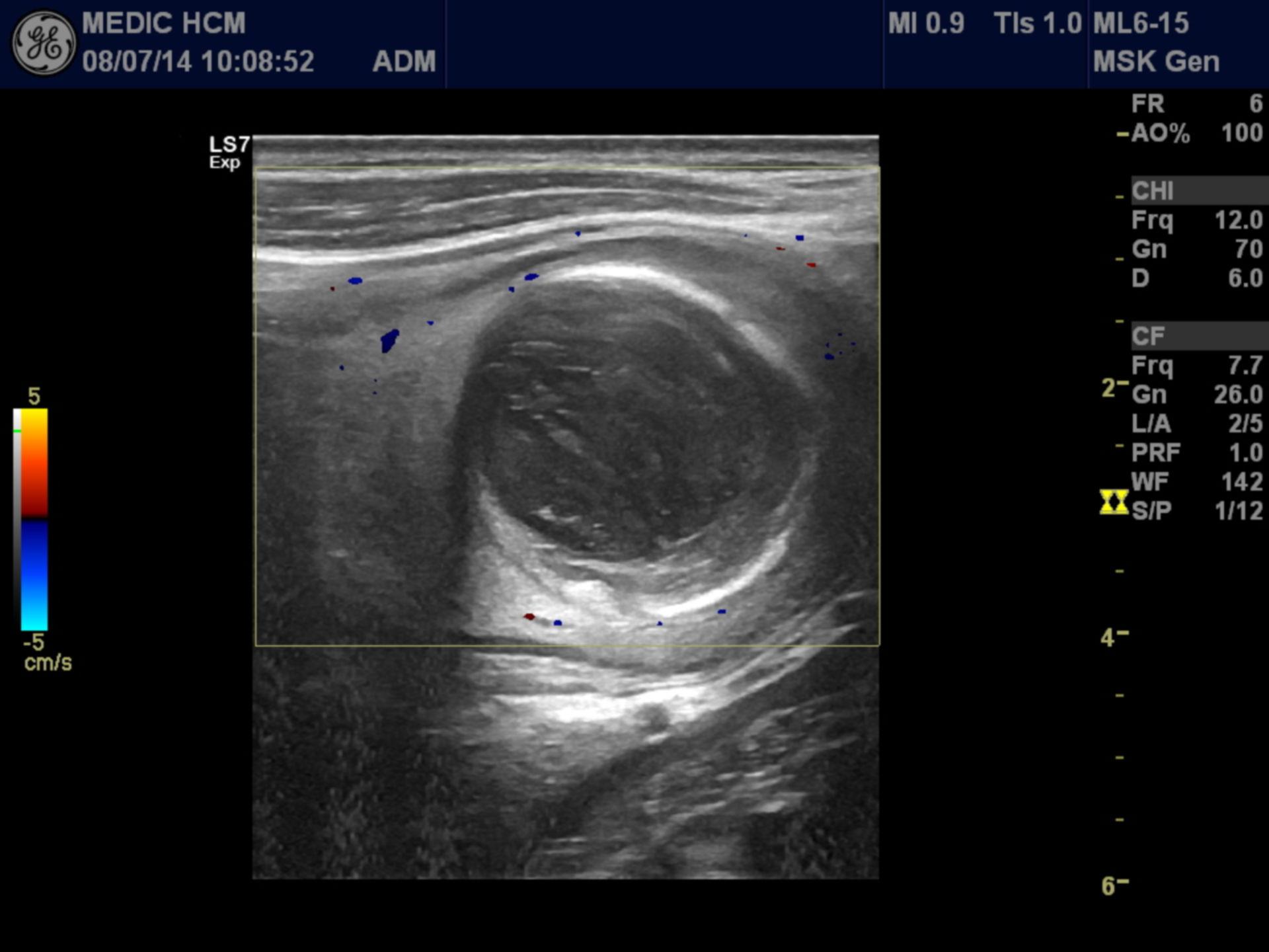 Mucocele del apéndice vermiforme (2)