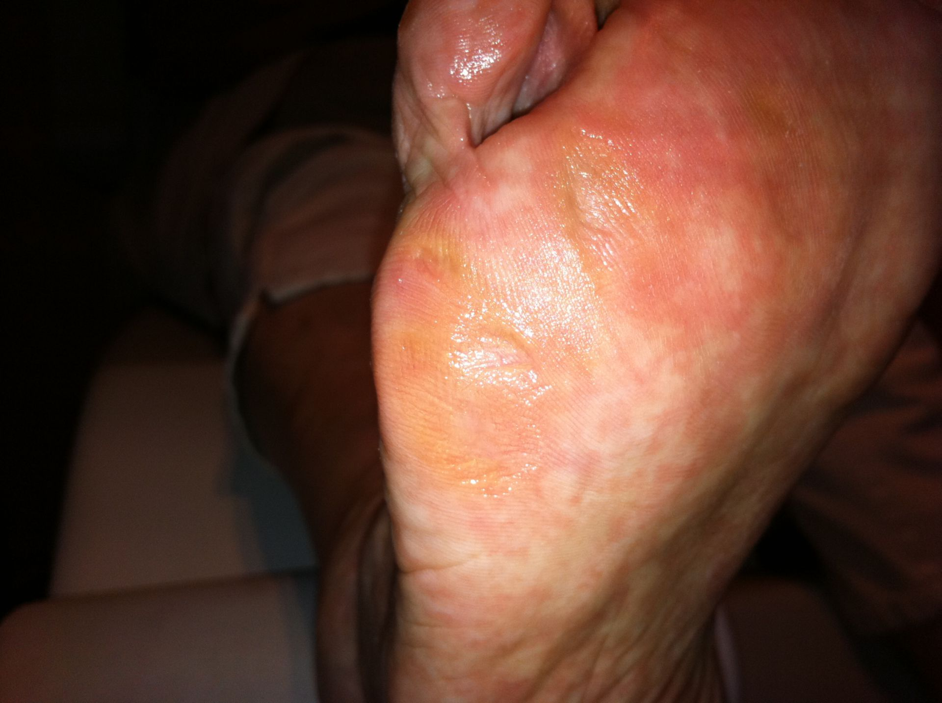 Callus after removal