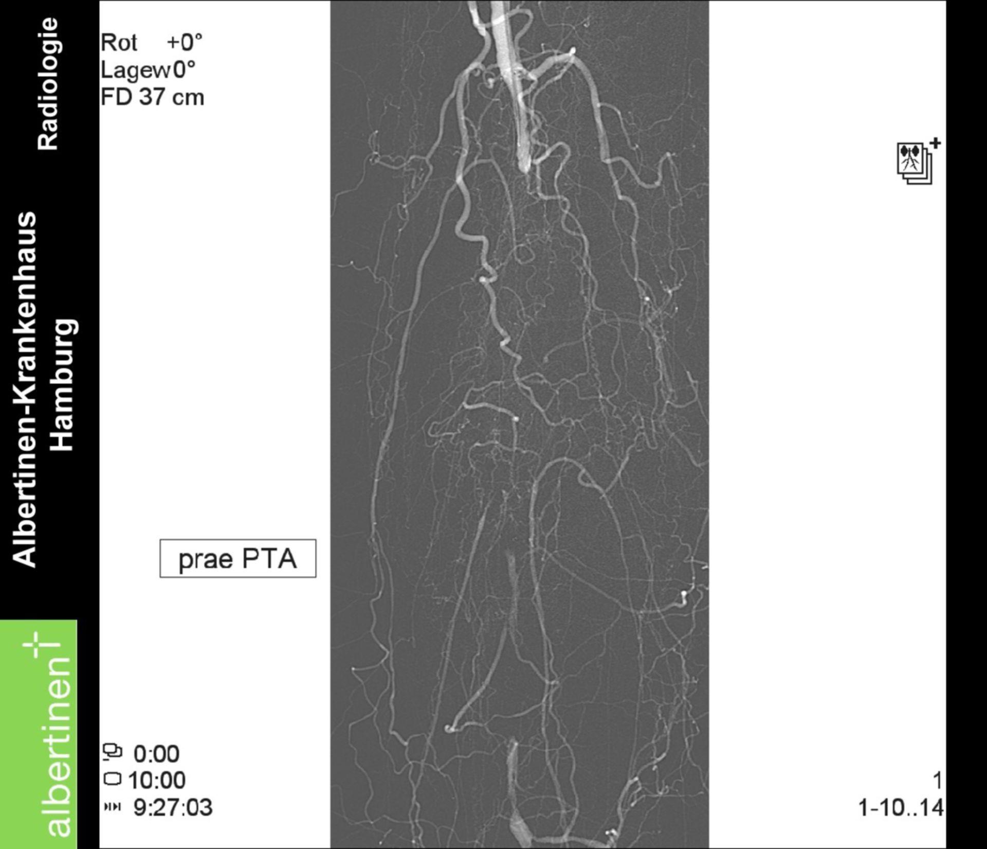 Occlusione acuta dell'arteria poplitea prima del PTA