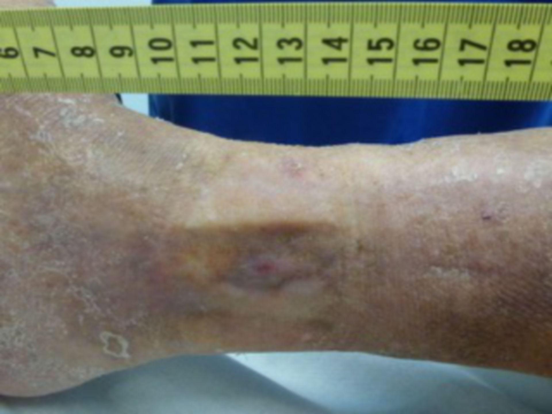 Úlcera de la pierna - abierta por 18 meses (12)