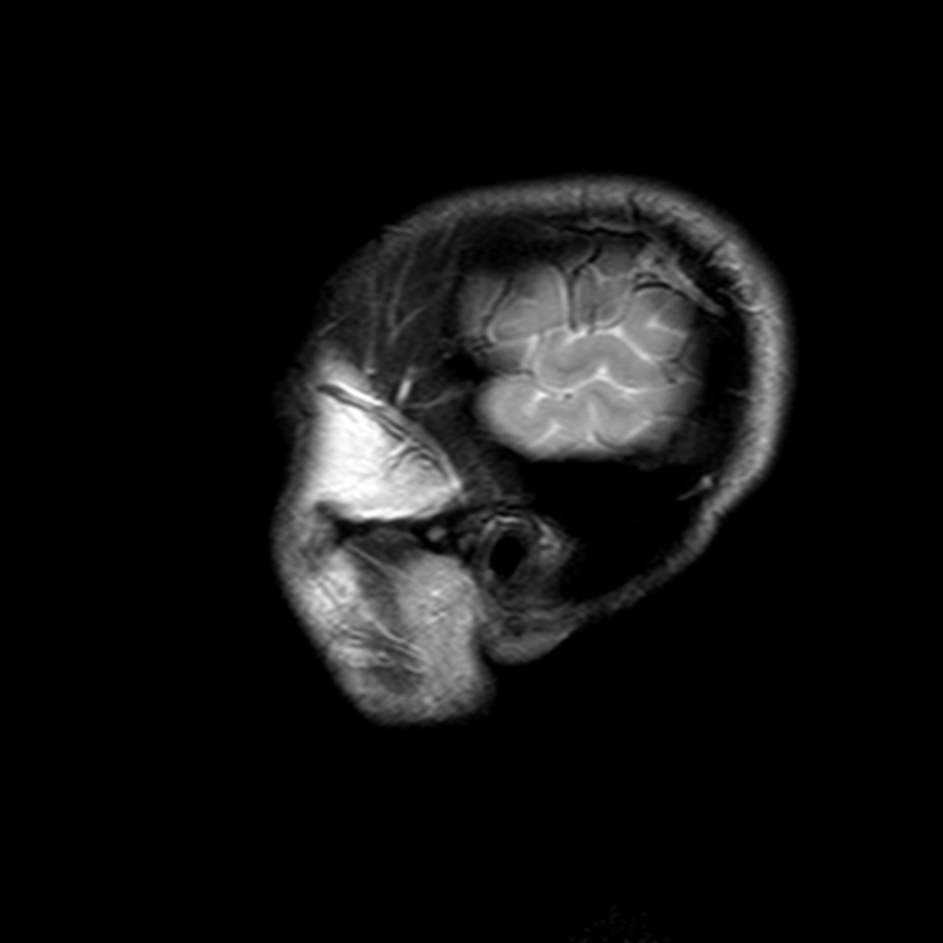 (03/34) MRT Schädel in Sagittalebene, T₂‐gewichtet