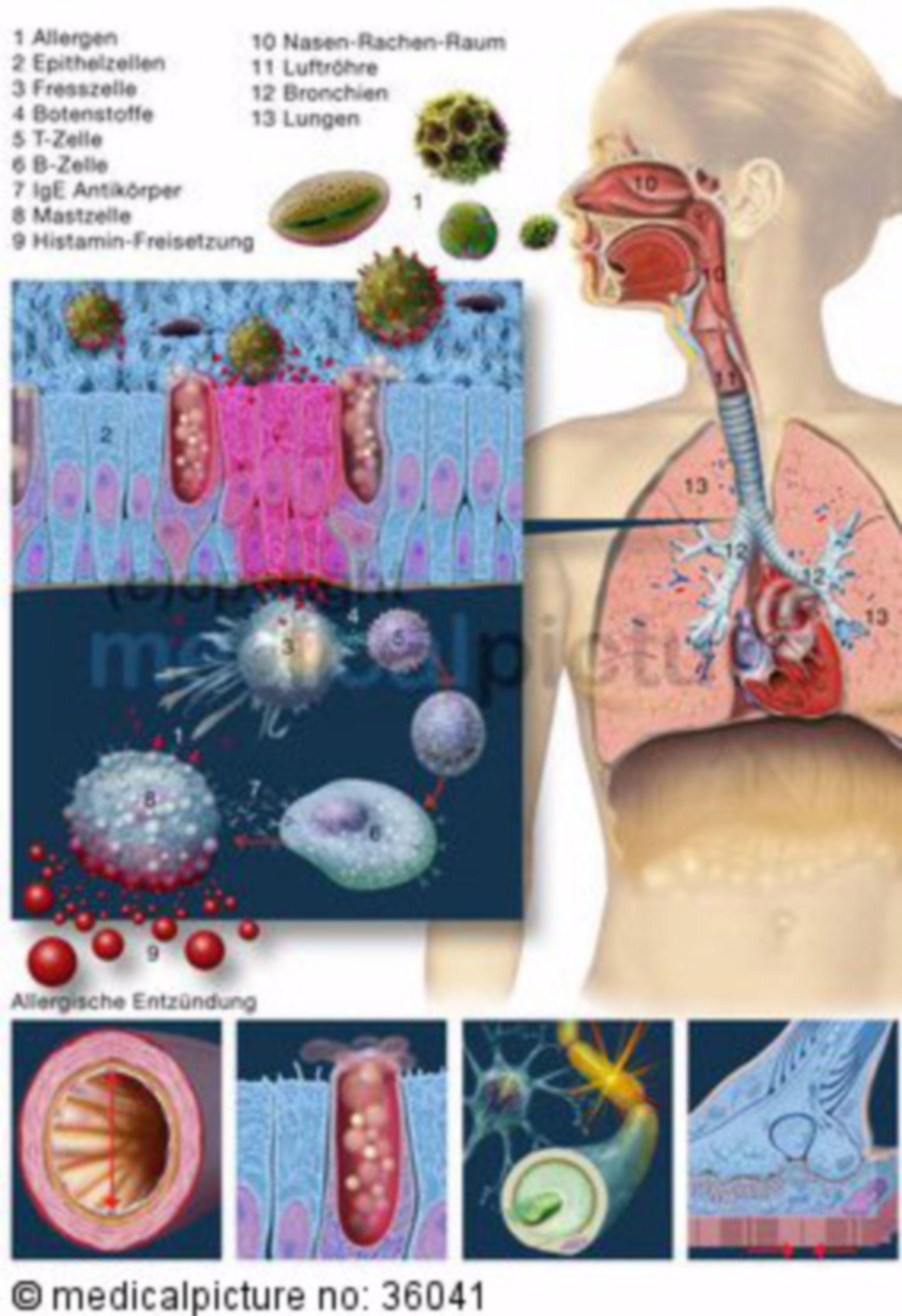 Immune reaction in case of allergy