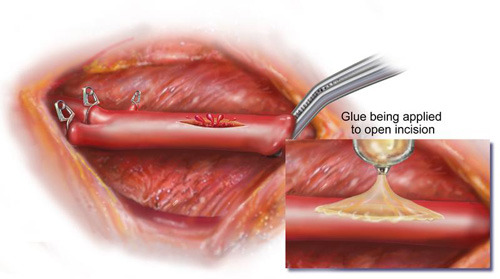 defektes Blutgefäß wird mit Klebstoff verschlossen. © Randal McKenzie / McKenzie Illustrations