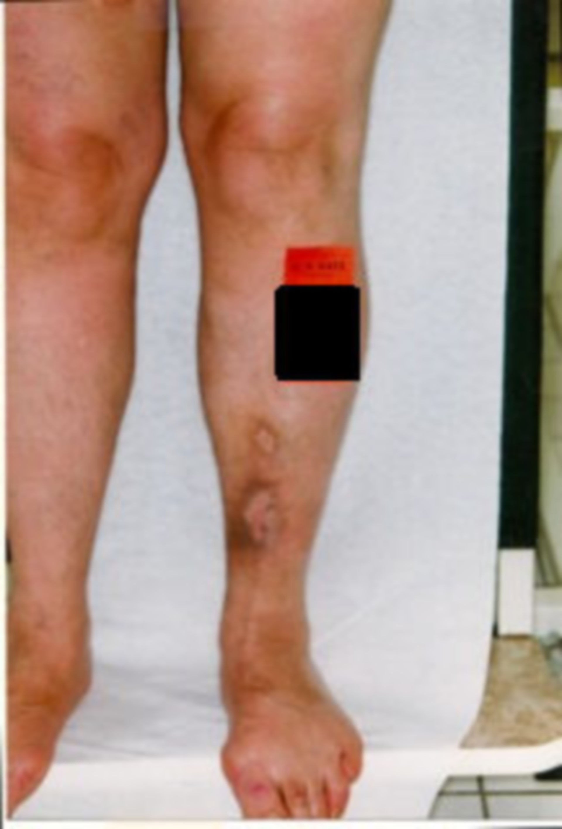 Herida abierta por 15 años (2) - resultado de las curaciónes