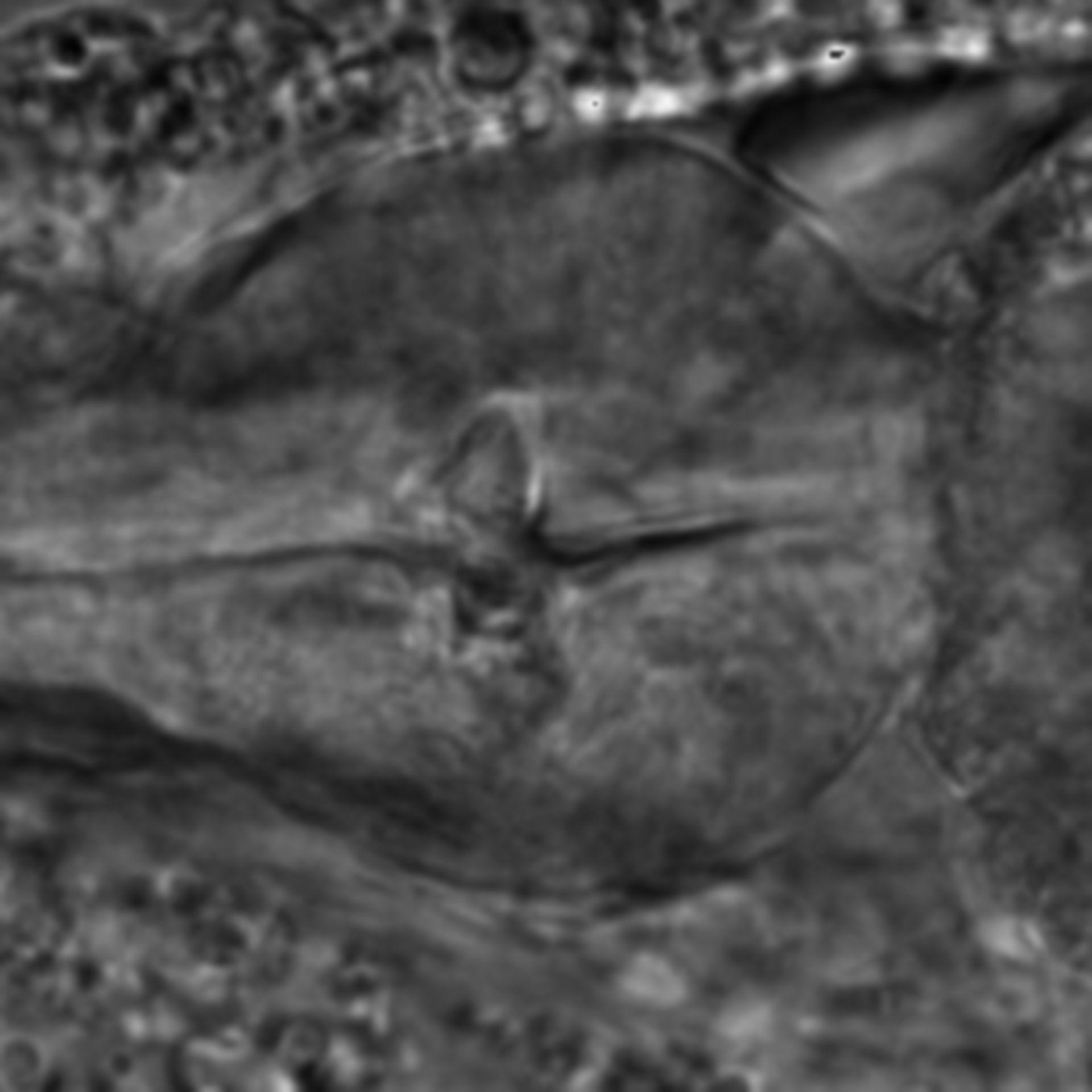 Caenorhabditis elegans - CIL:1768