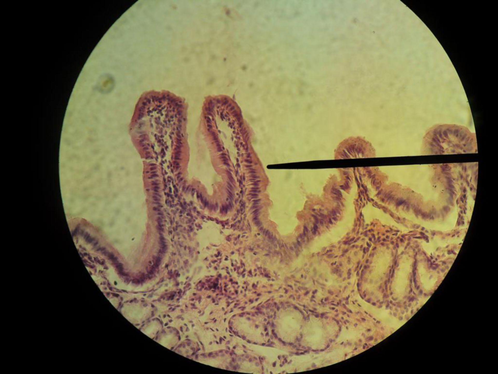 Hochprismatisches Epithel (2) - Übersicht der Gallenblase beim Hund