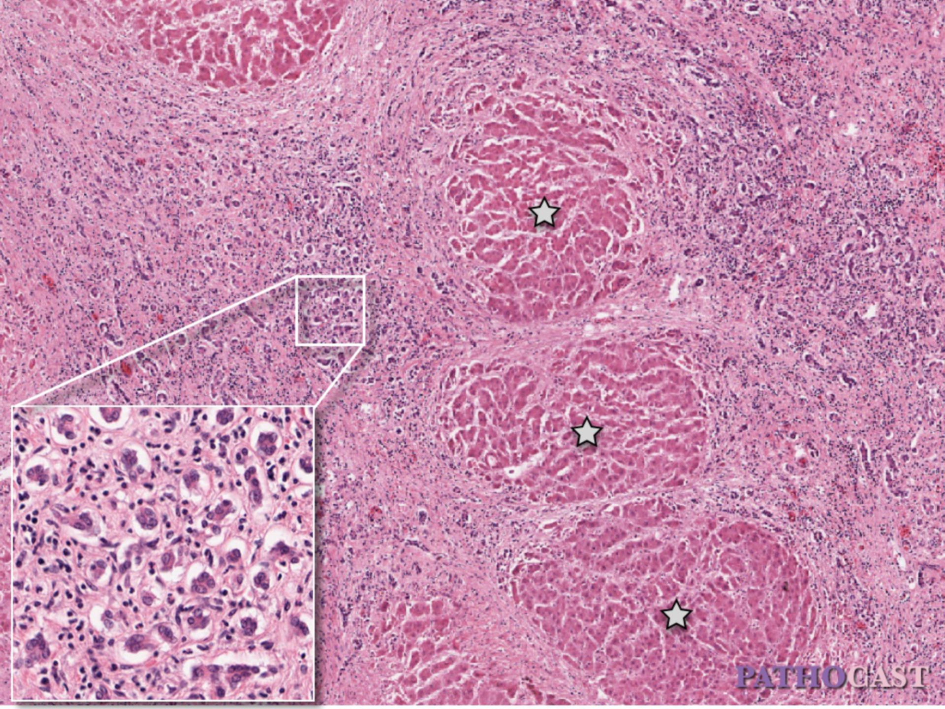 Proliferations liver cirrhosis with bile duct