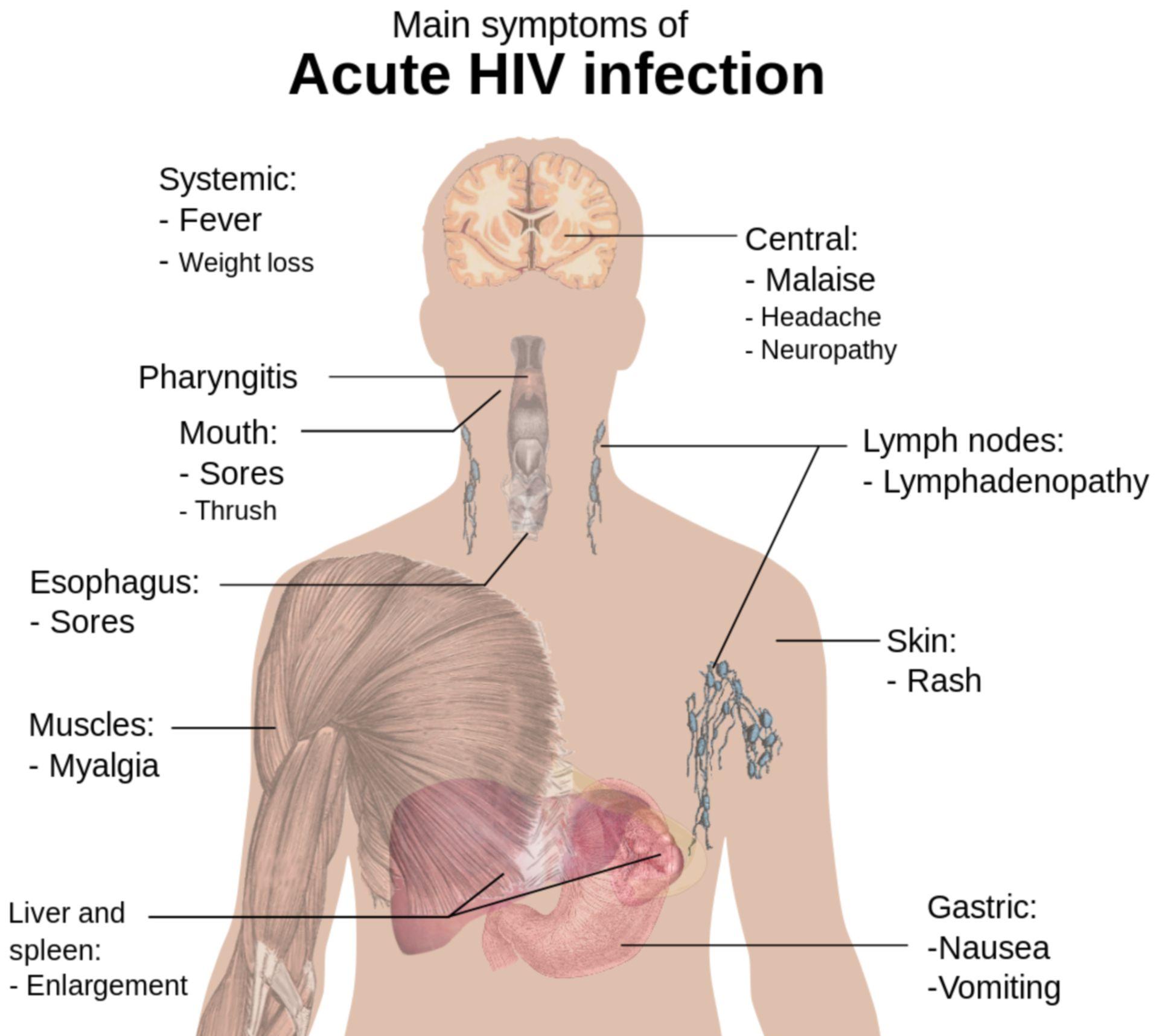 Symptome einer akuten HIV Infektion