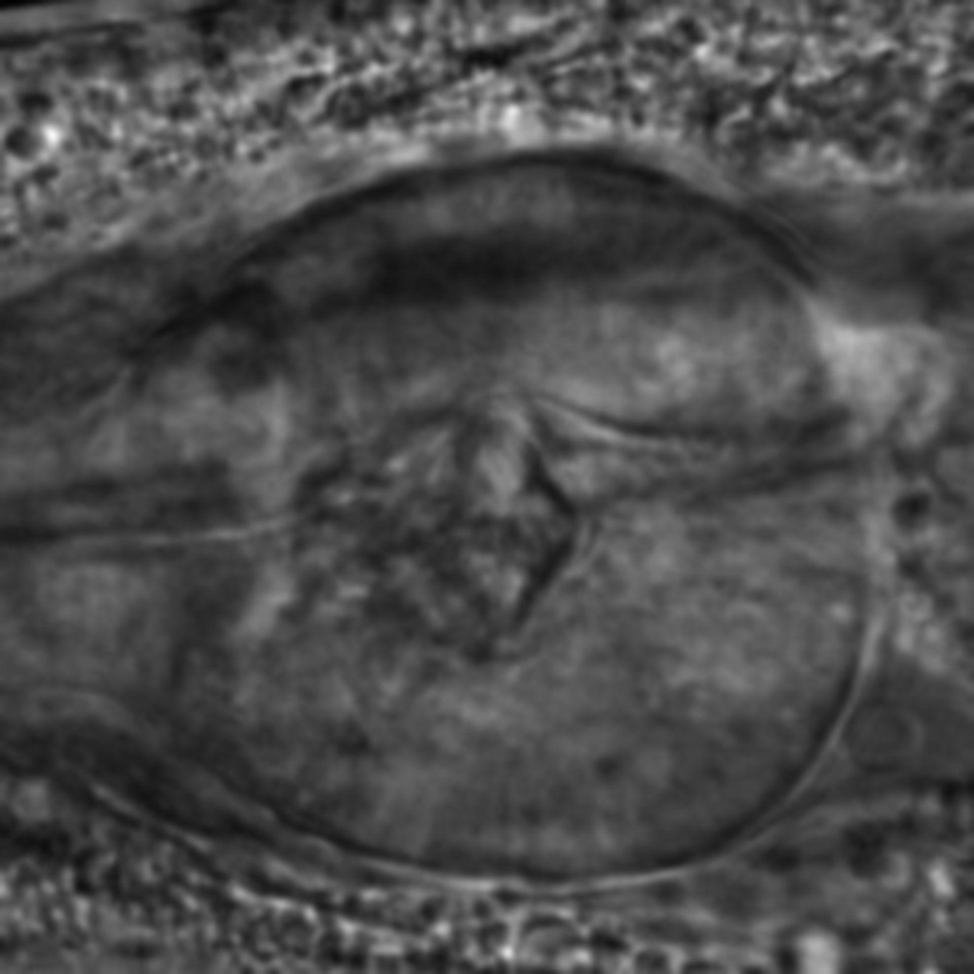Caenorhabditis elegans - CIL:2790