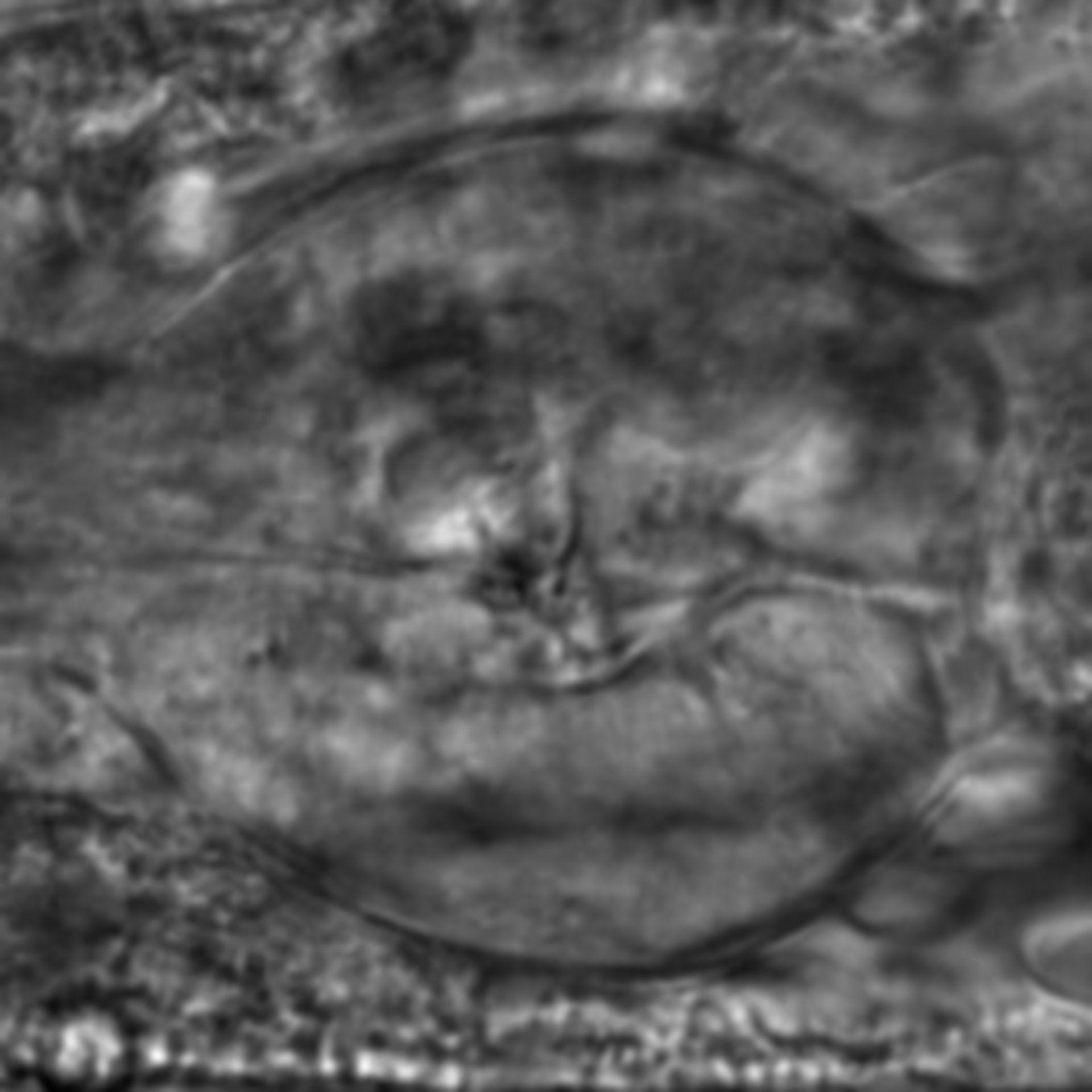Caenorhabditis elegans - CIL:2780