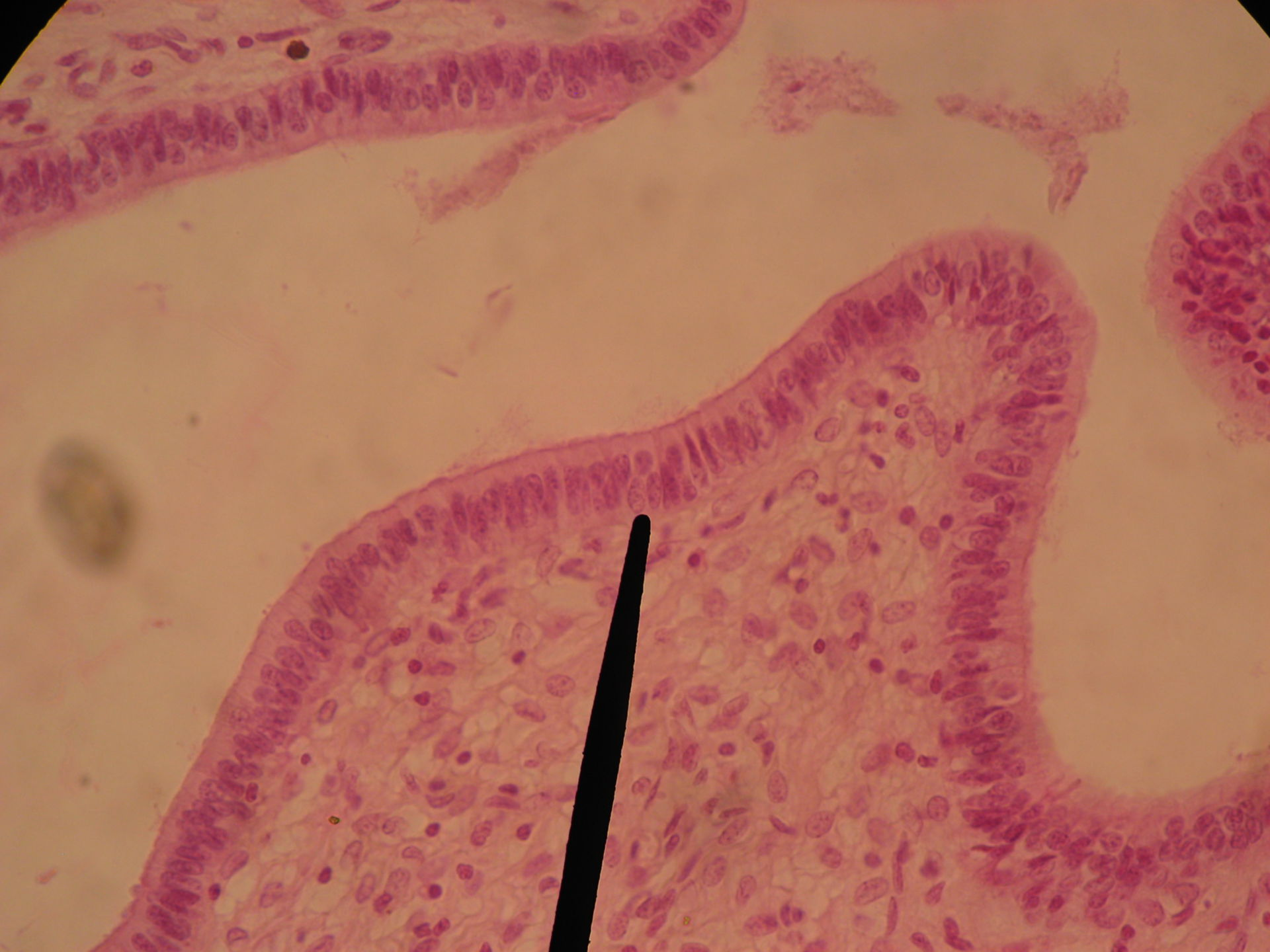 Gebärmutterhals Zibbe (2) - Epithelium mucosae