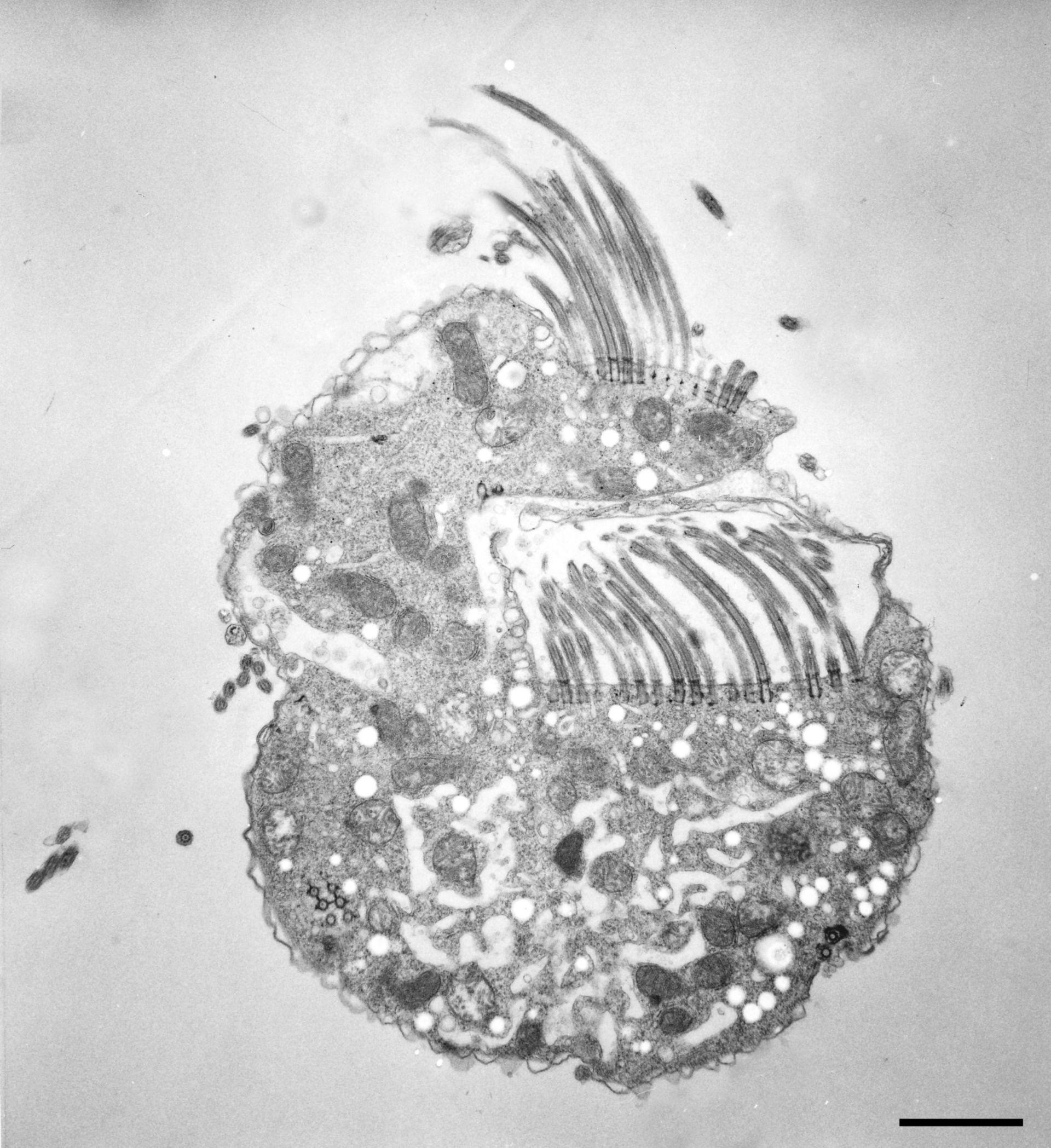 Halteria grandinella (citoplasma) - CIL:12320