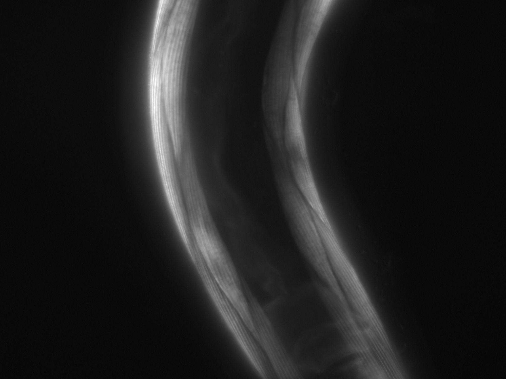 Caenorhabditis elegans (filamento di actina) - CIL:1069